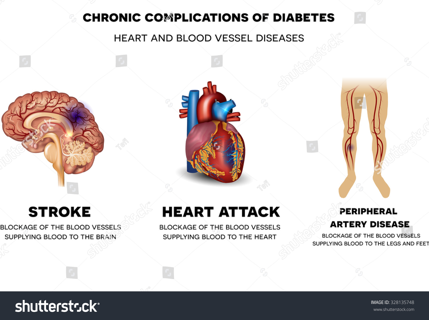 Chronic Complications Diabetes Heart Blood Vessel Stock Vector ...