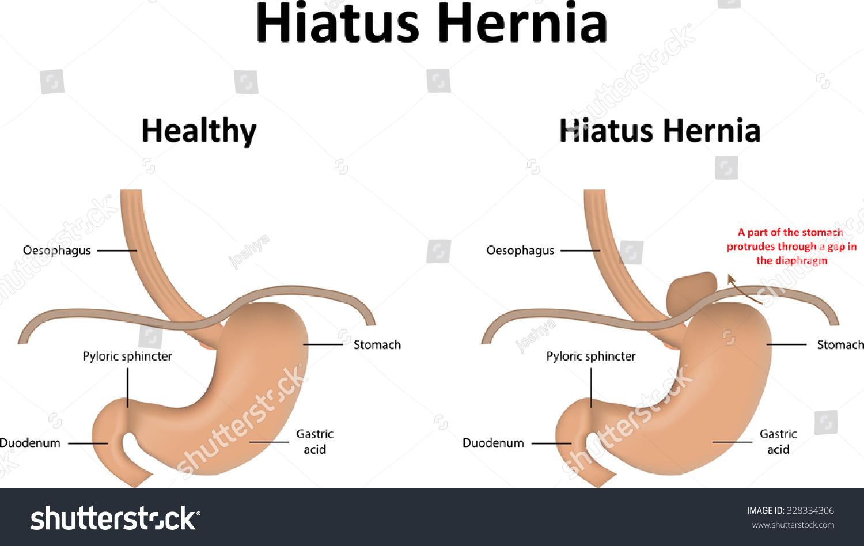 Hiatus Hernia Stock Vector 328334306 - Shutterstock