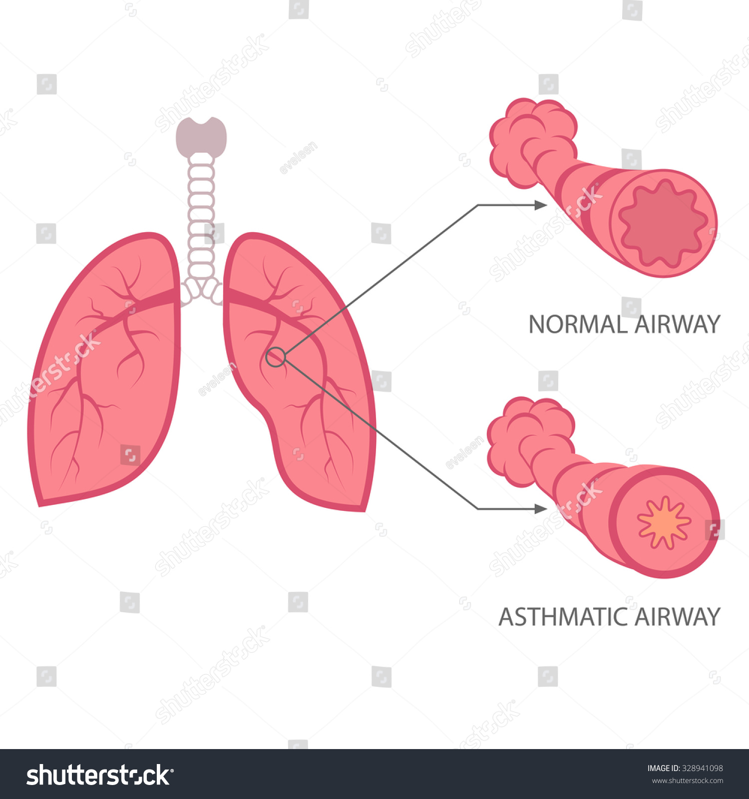 asthma a respiratory disease Asthma is a chronic (life time) disease that makes your lungs very sensitive and hard to breathe asthma can't be cured, but with proper treatment, people with asthma can lead normal, active livesif you have asthma, your airways (breathing passages) are.