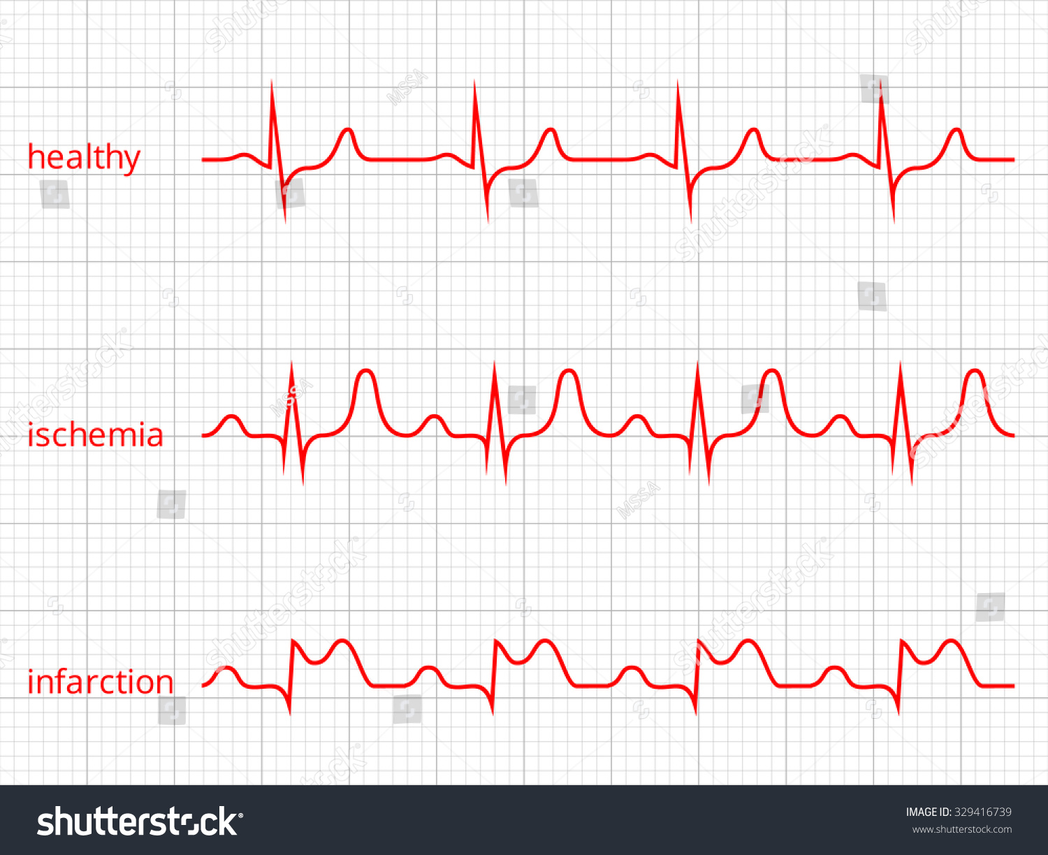 Royalty free heart cardiogram vector charts set 329416739 stock heart cardiogram vector charts set healthy heart rhythm ischemia infarction vitality heartbeat nvjuhfo Images