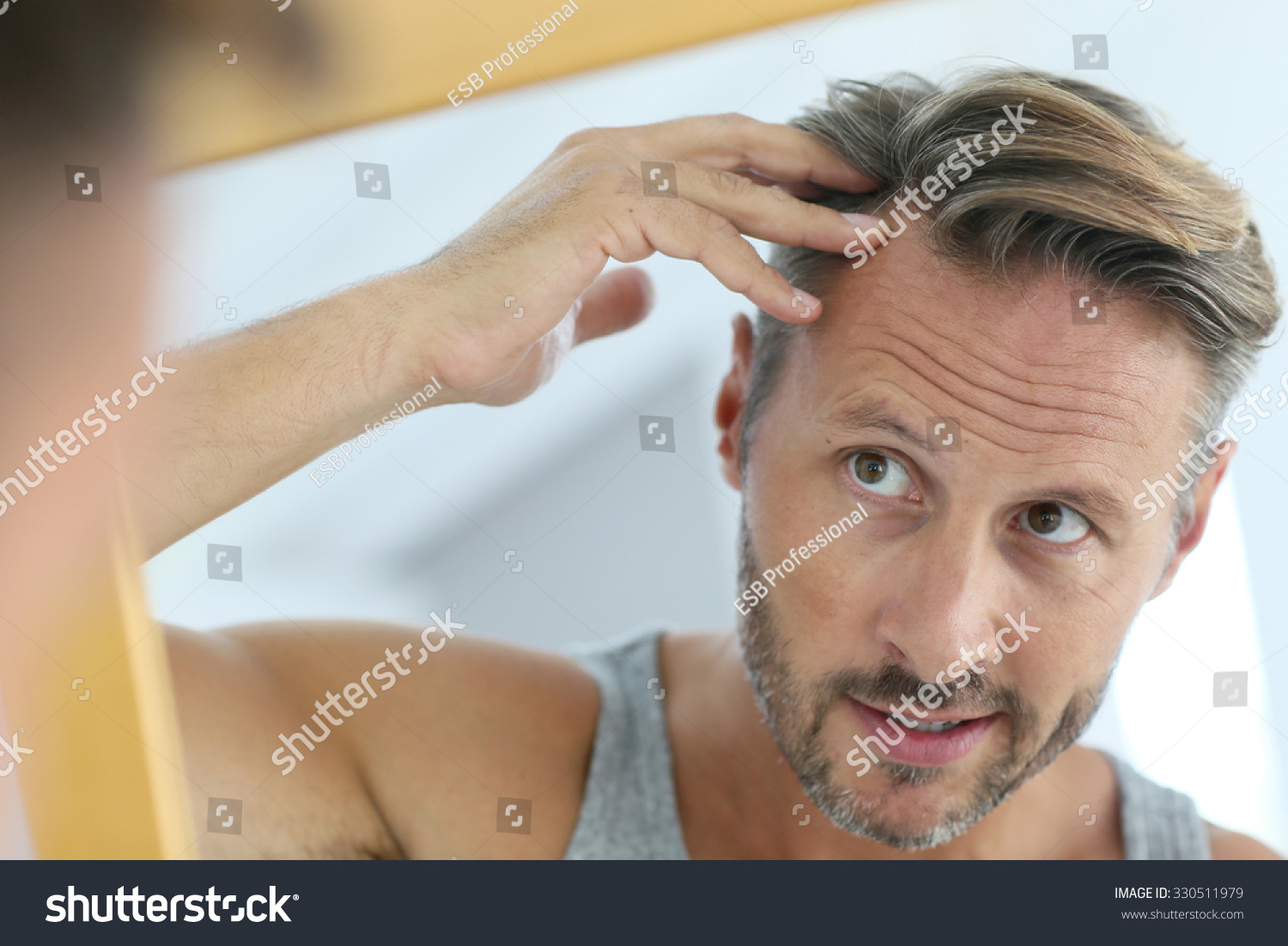 Middleaged Man Concerned By Hair Loss Stock Photo ...