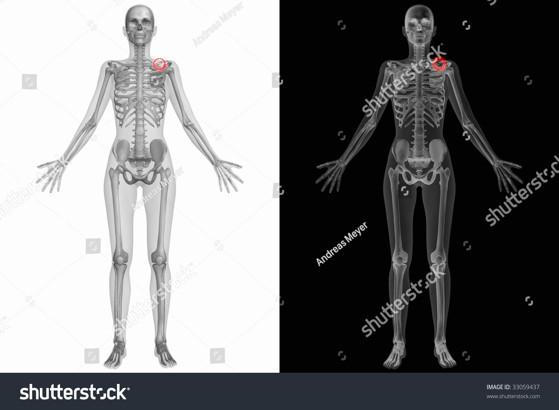 Human Anatomy Broken Left Clavicle Stock Illustration 33059437