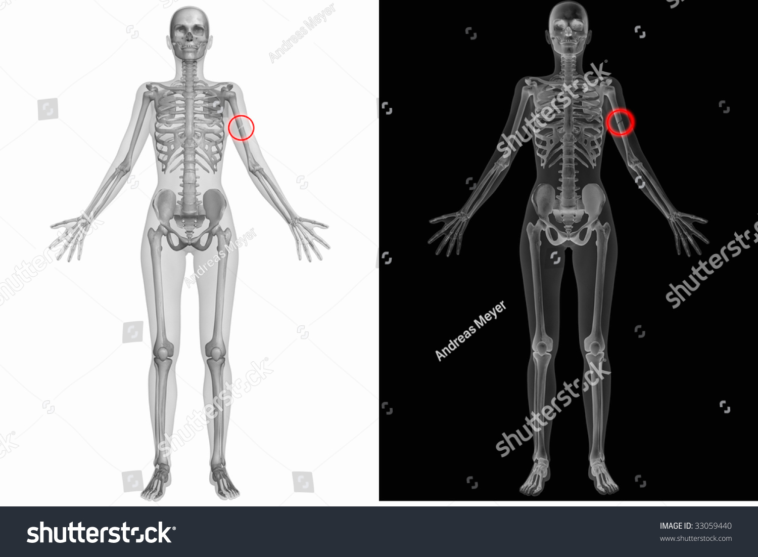 Crushed Human Bone : Human anatomy broken left humerus stock photo