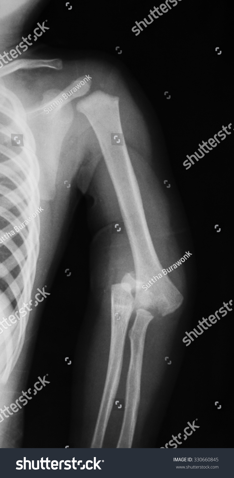 Xray Image Elbow Showing Fractures Dislocation Stock Photo (Royalty ...