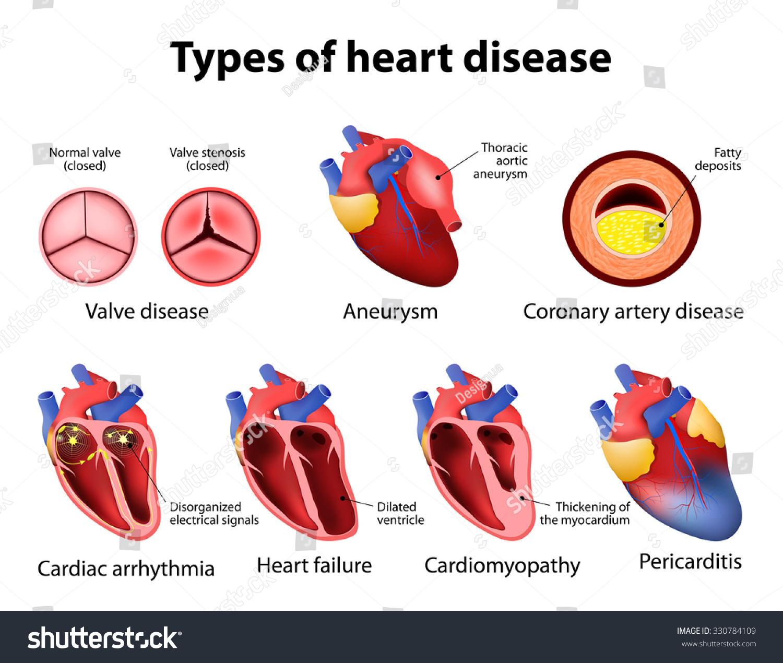 Heart Disease Valve Disease Aneurysm Coronary Stock Vector HD ...