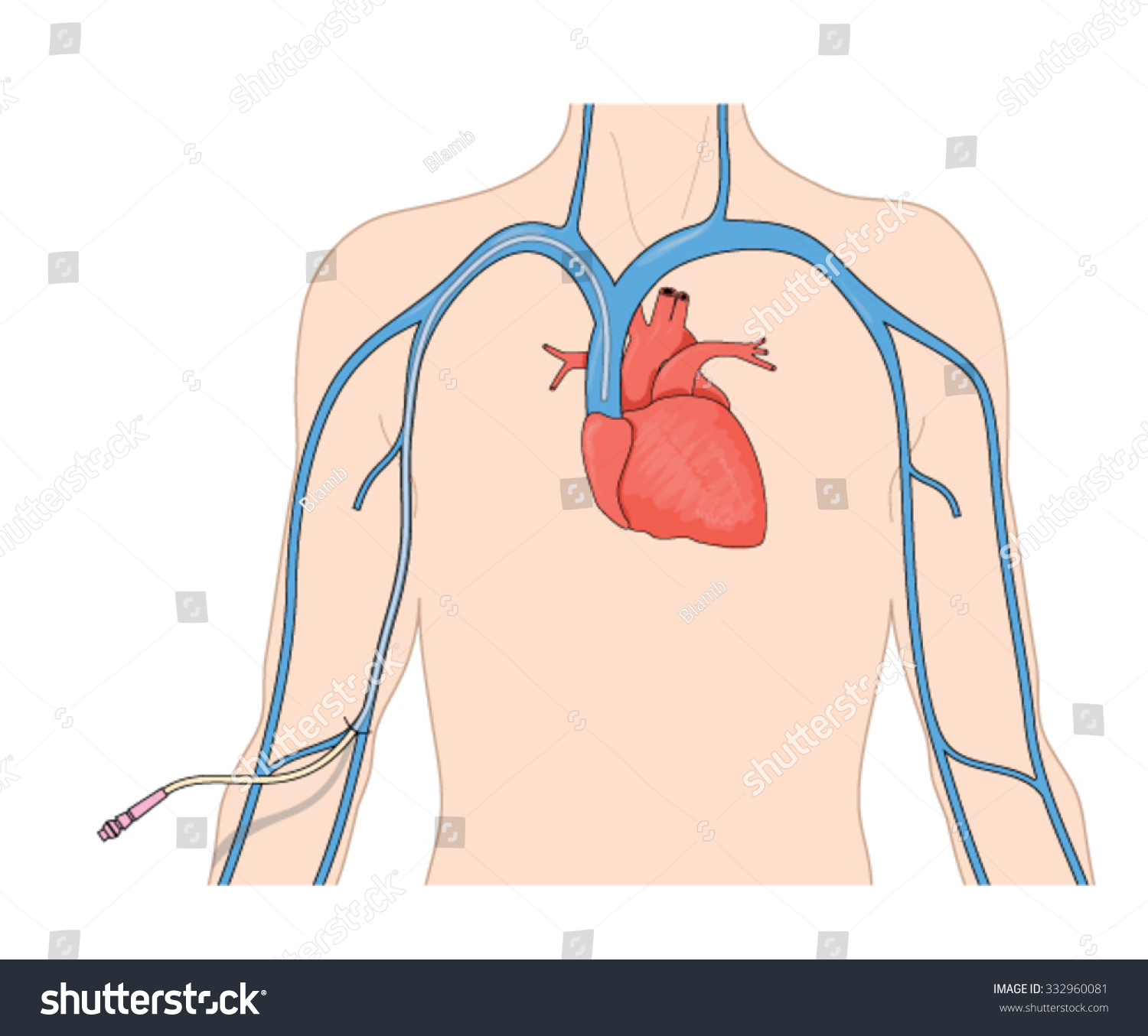 Catheter Line PICC Inserted Into Superior Stock Vector (Royalty Free ...