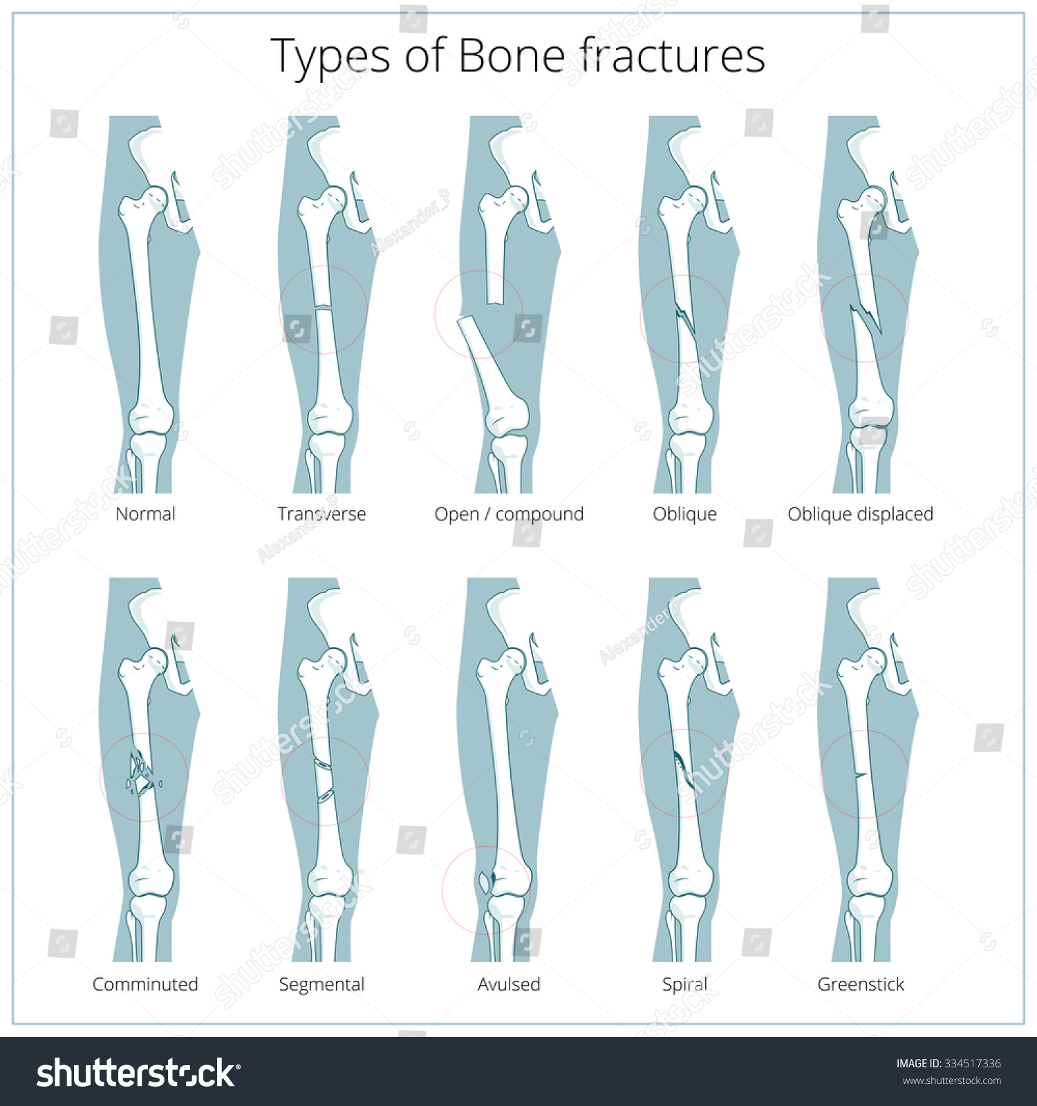 Types Bone Fractures Medical Skeleton Anatomy Stock Vector Royalty