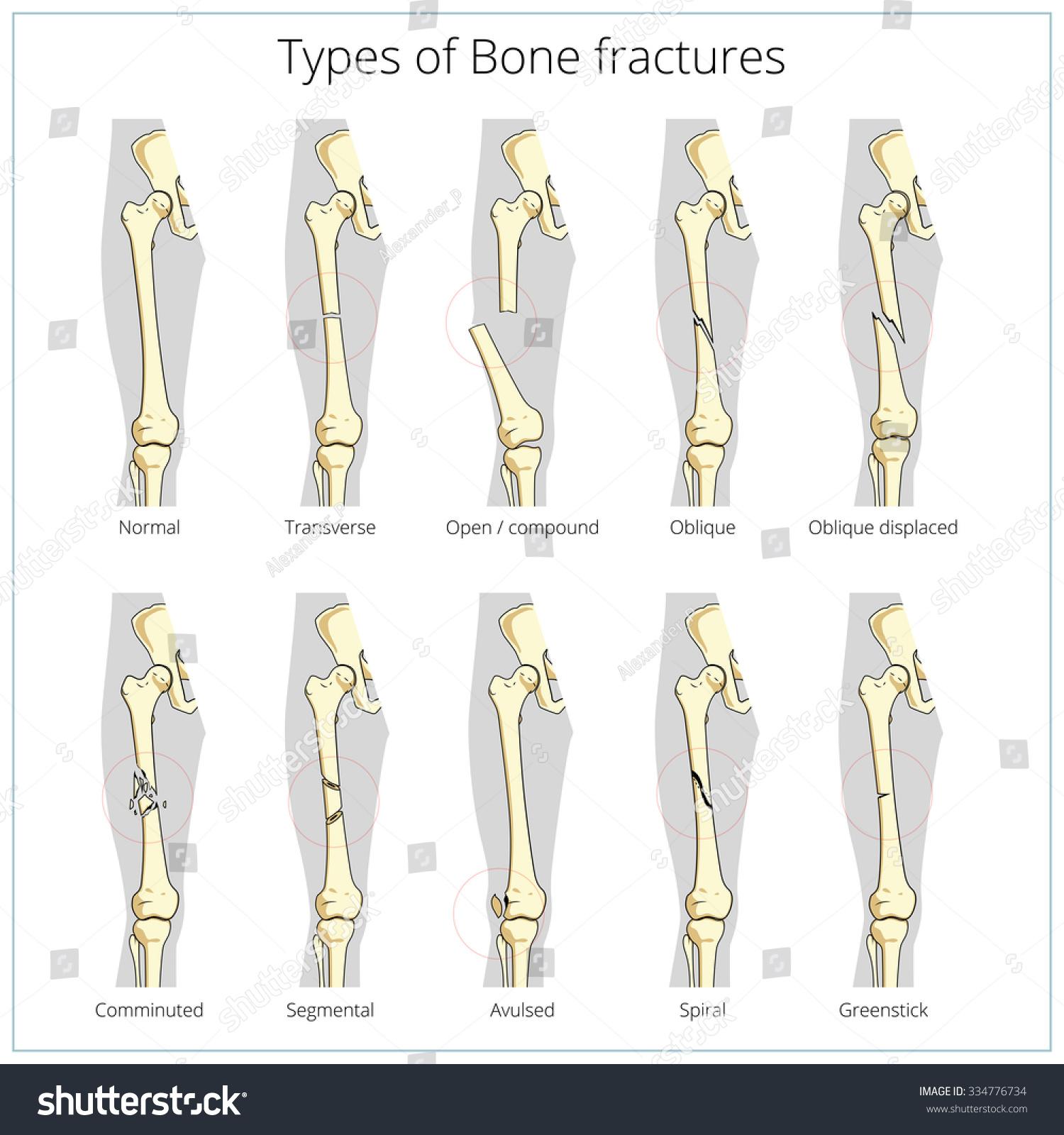 Types Bone Fractures Medical Skeleton Anatomy Stock Illustration
