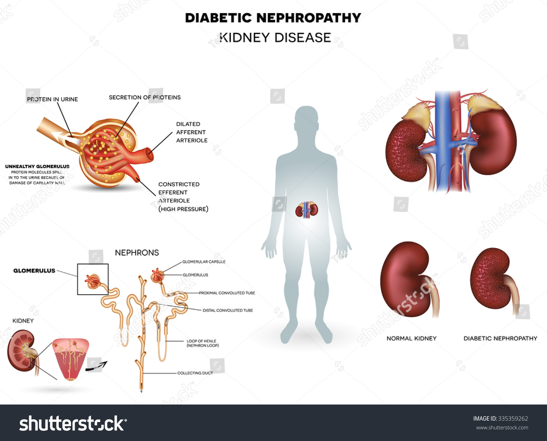nephropathy kidney disease caused by diabetes stock illustration