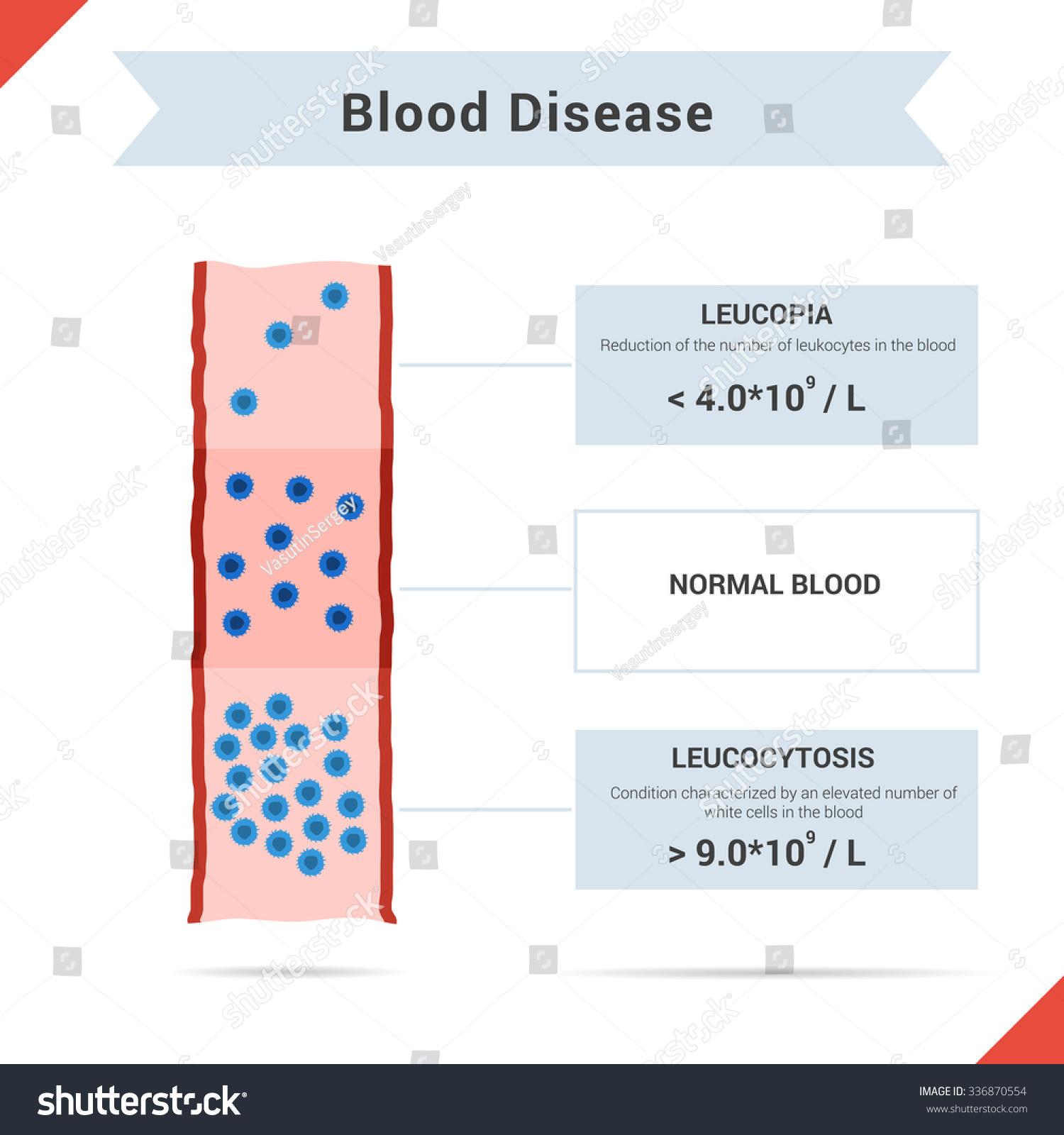 leukopenia disease Gallery