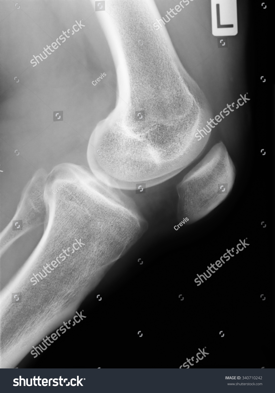 Human Knee Anatomy Xray Stock Illustration 340710242 - Shutterstock