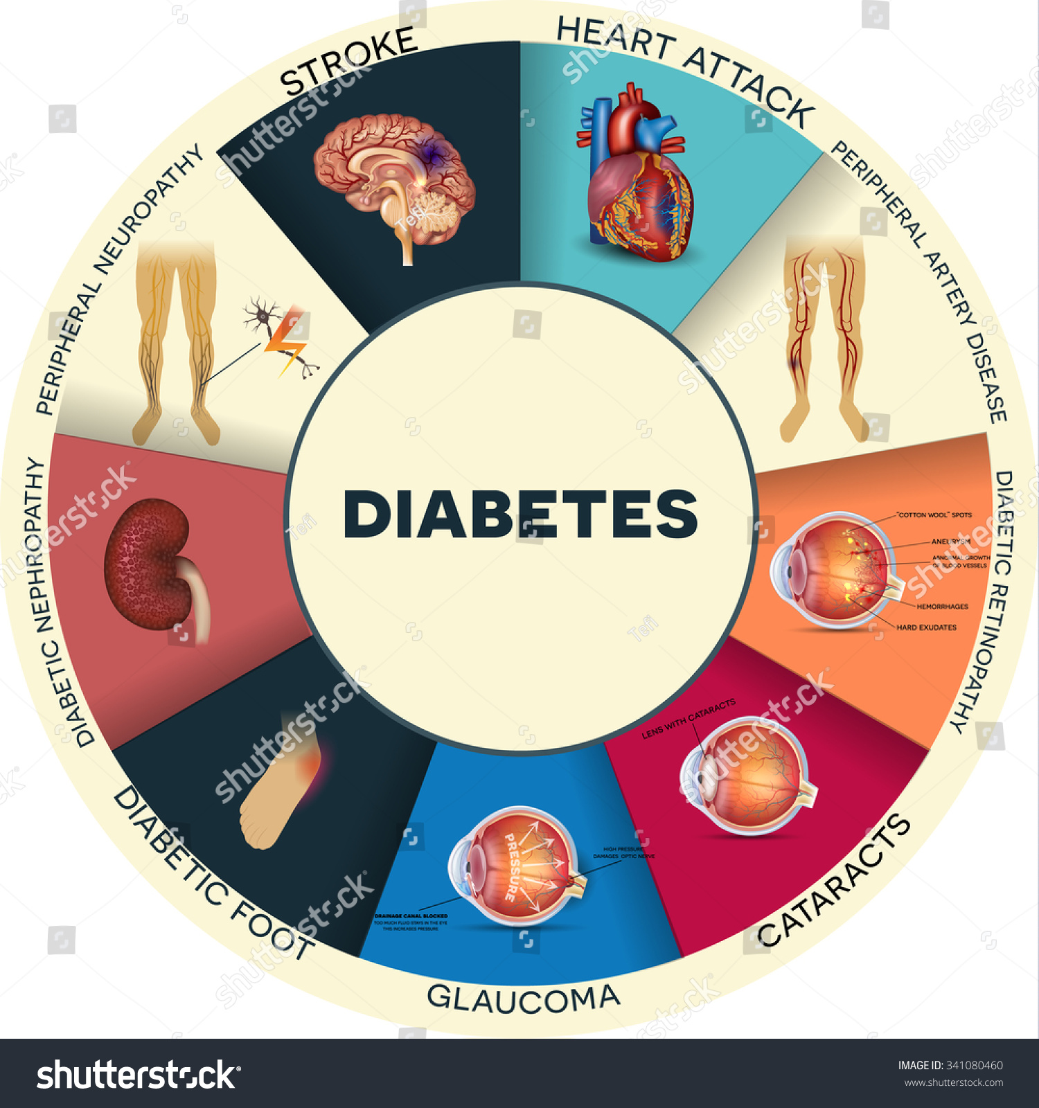 Diabetes Side Effects Clip Art