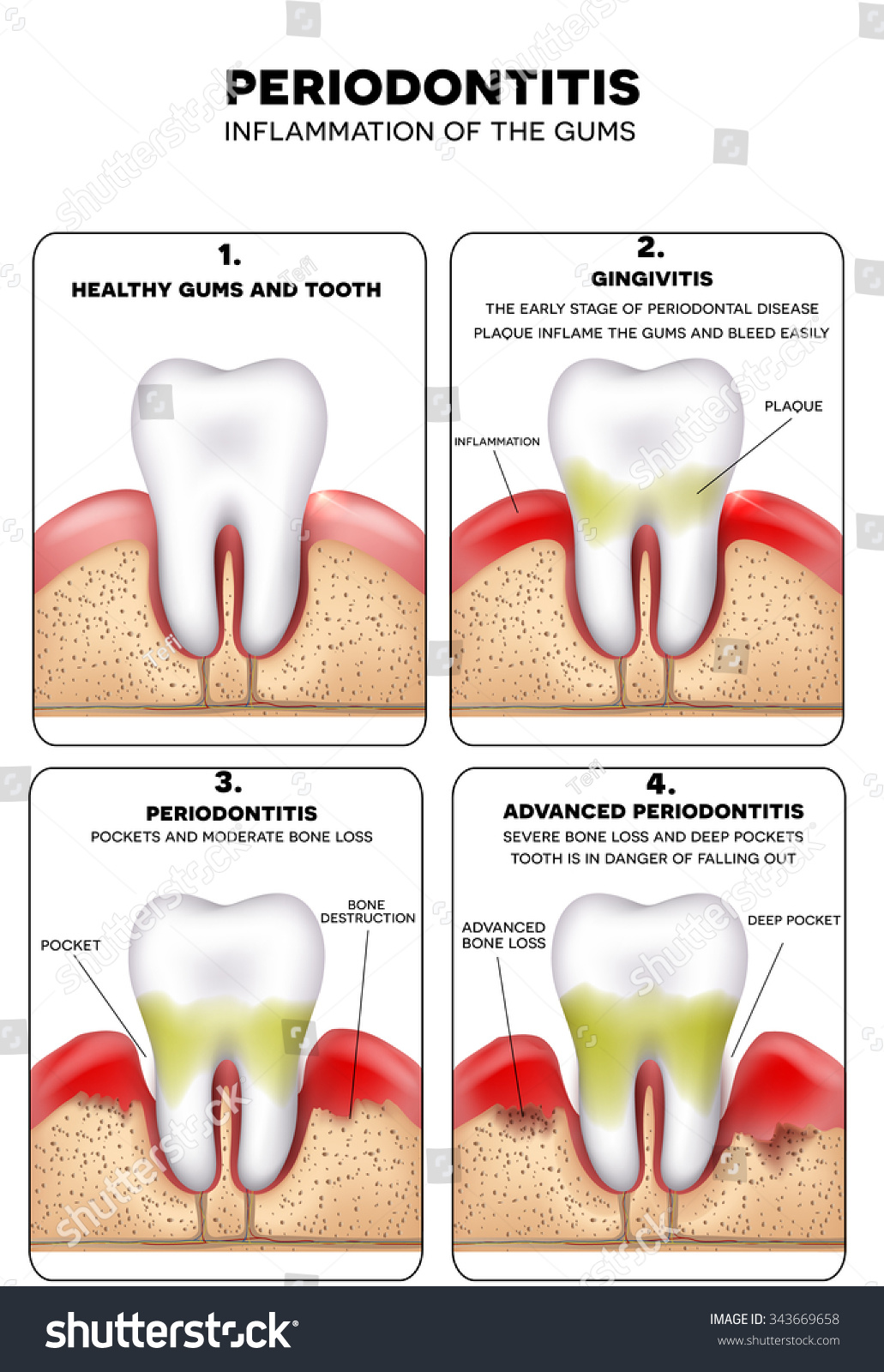 Periodontitis Inflammation Gums Healthy Tooth Gingivitis Stock ...