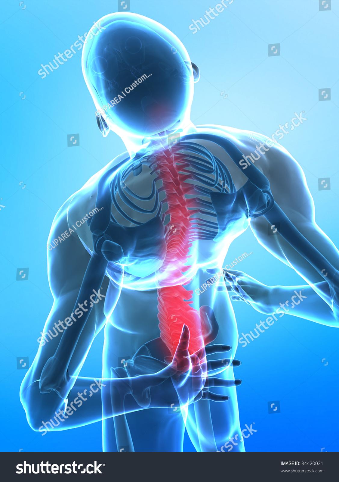 Pain Bottom Side Spine Stock Illustration 34420021 Shutterstock