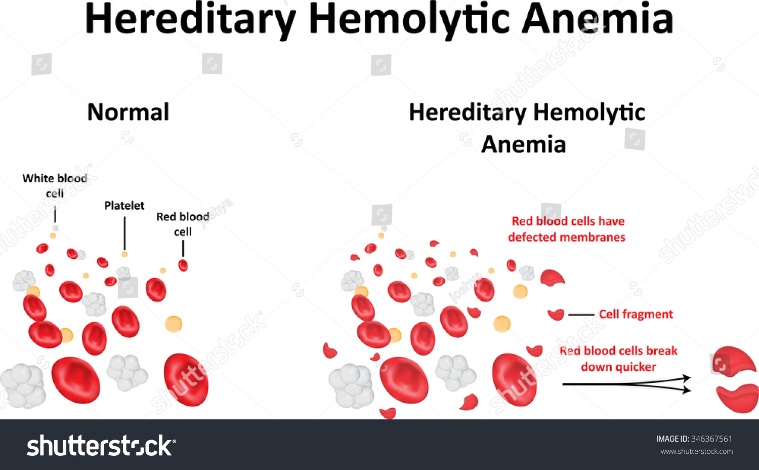hereditary hemolytic anemia diagram stock vector 346367561, Skeleton