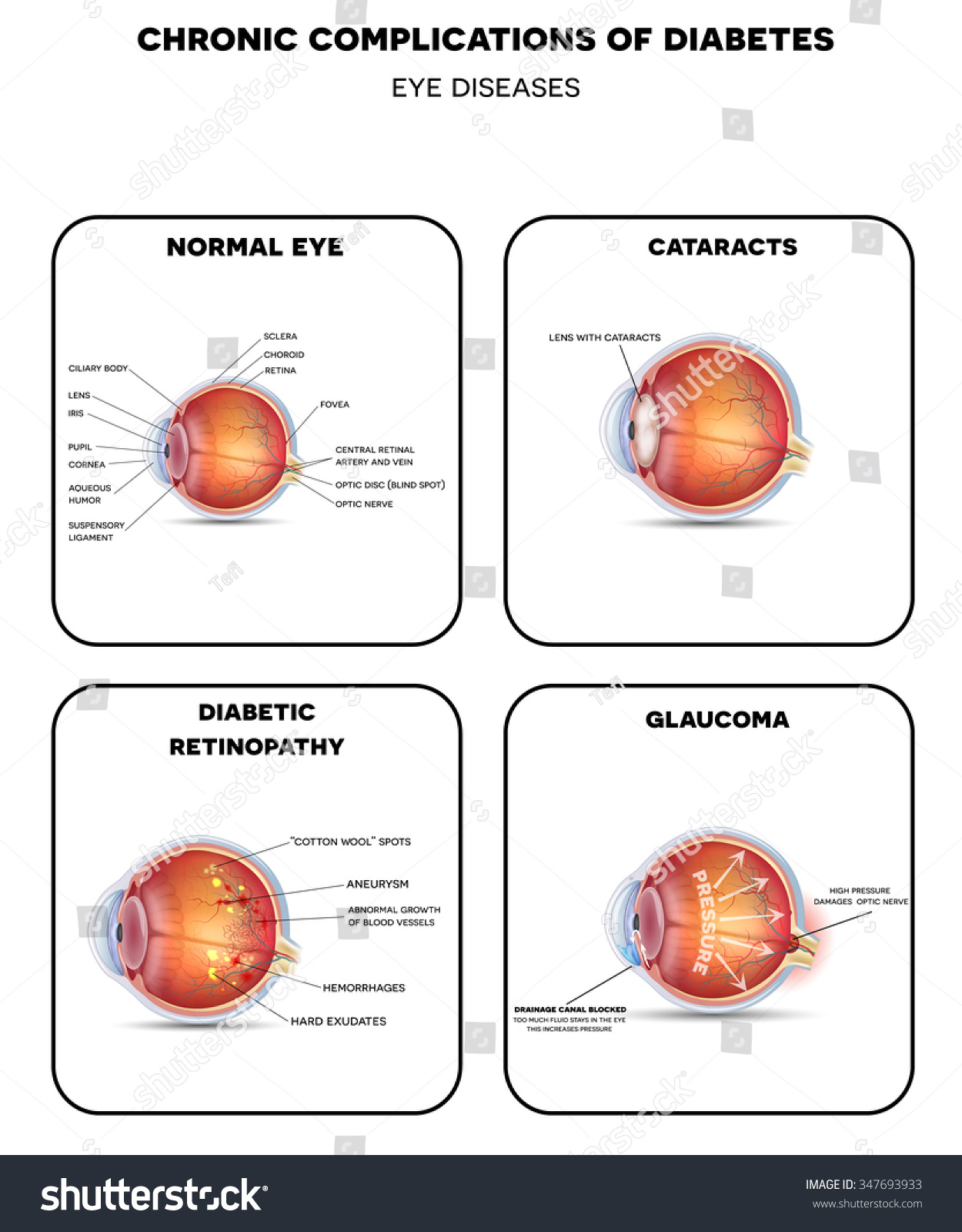 Diabetic Vision Diseases Retinopathy Cataract Glaucoma Stock ...