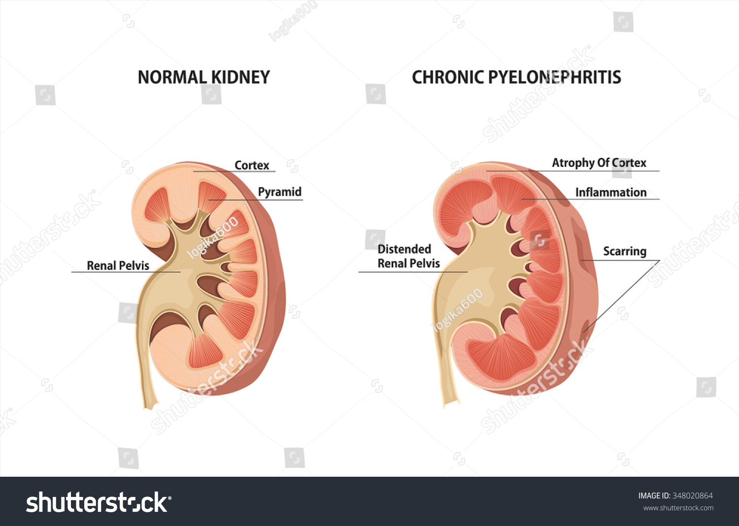chronic pyelonephritis - photo #6