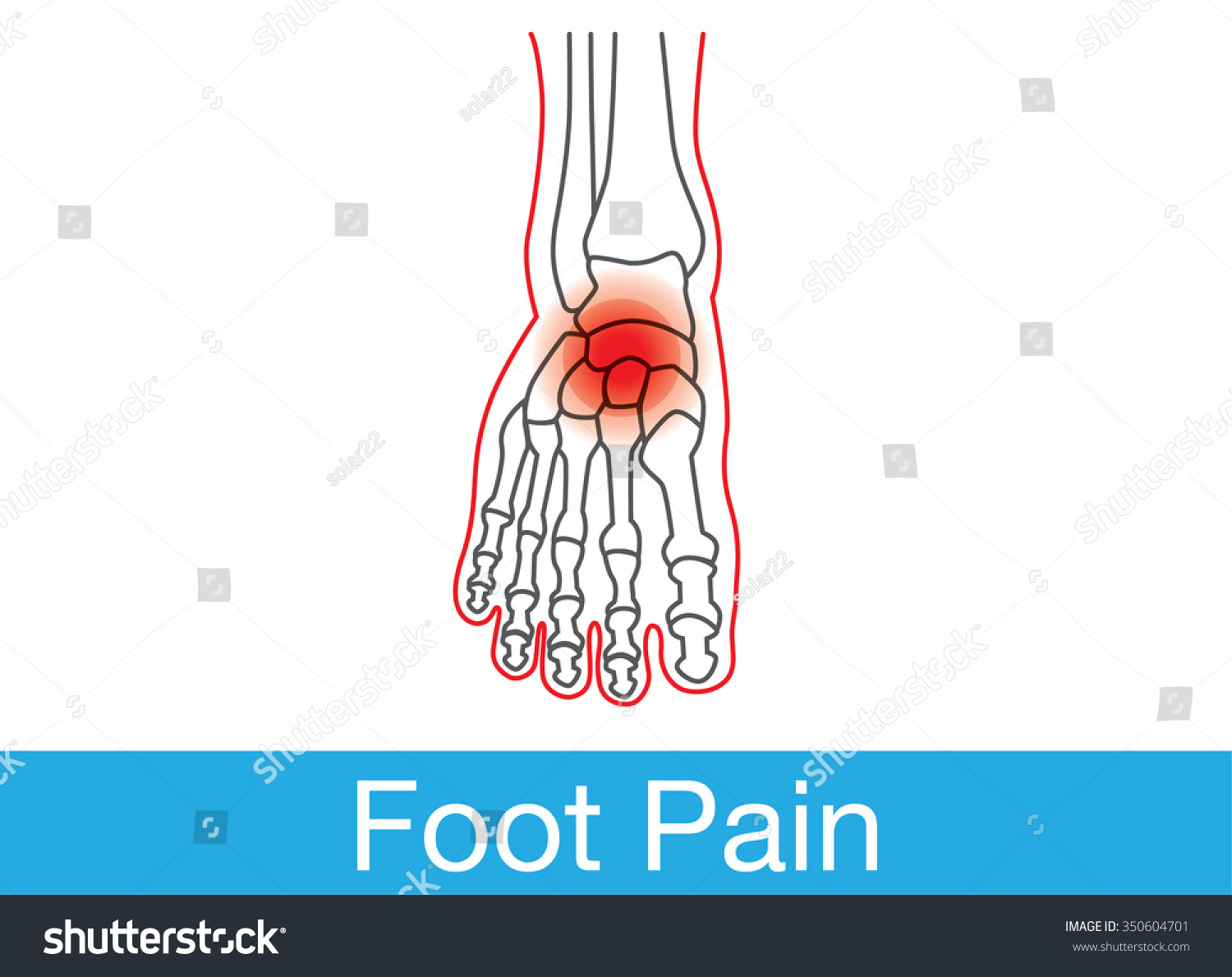 Outline Foot Bone Which Have Pain Stock Vector 350604701 - Shutterstock