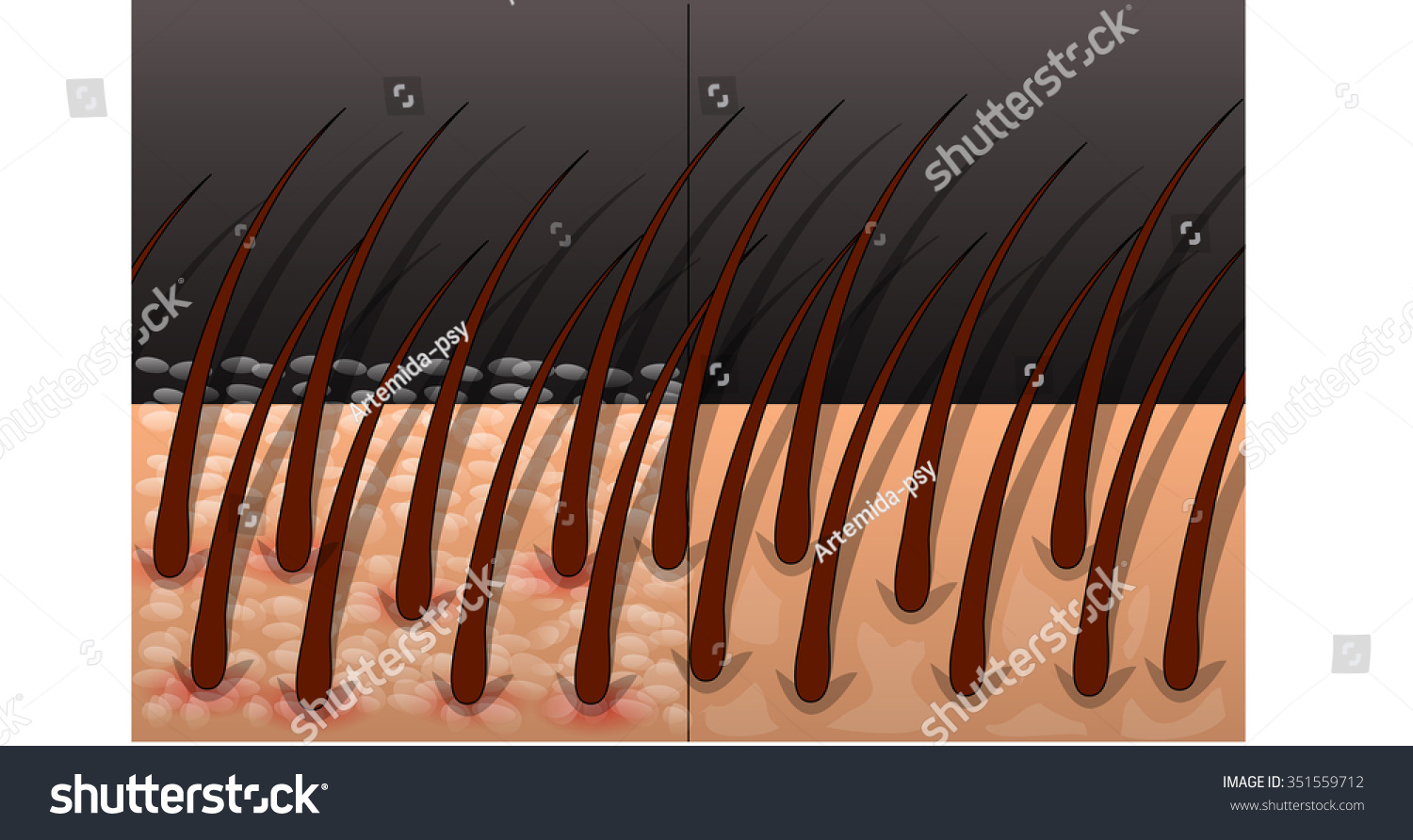 Healthy Scalp Scalp Affected By Inflammation Stock Vector
