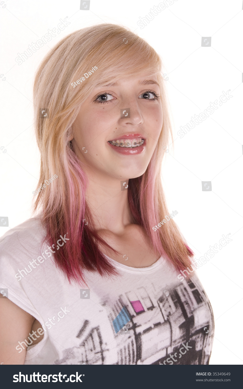 Pretty Teenage Girl With Blonde And Pink Hair Wearing Dental Braces White Background