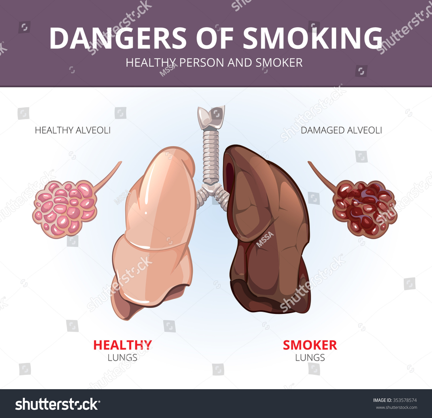 the gallery for gt unhealthy person smoking
