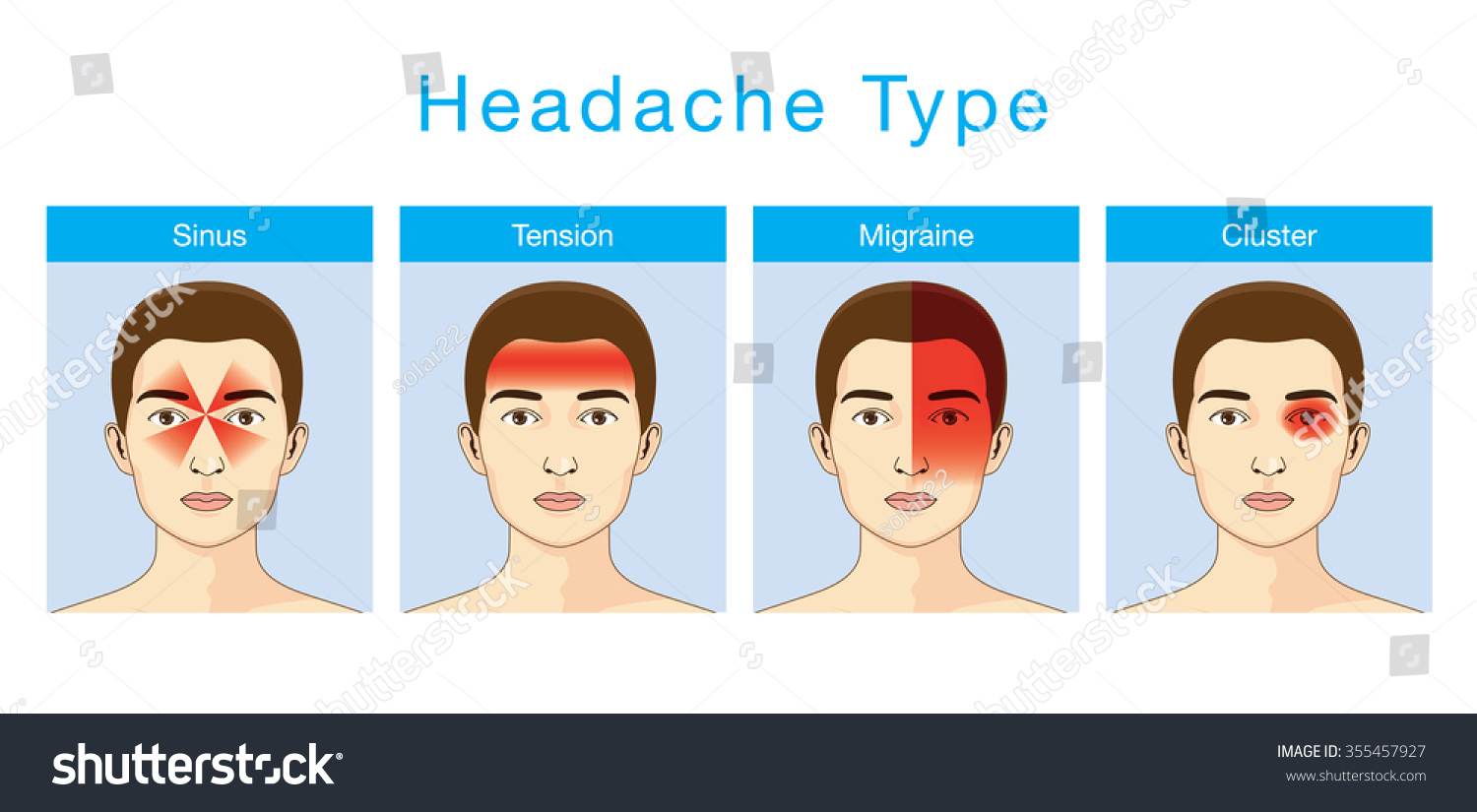 Illustration about headaches 4 type on stock vector 355457927 illustration about headaches 4 type on different area of patient head pooptronica Image collections