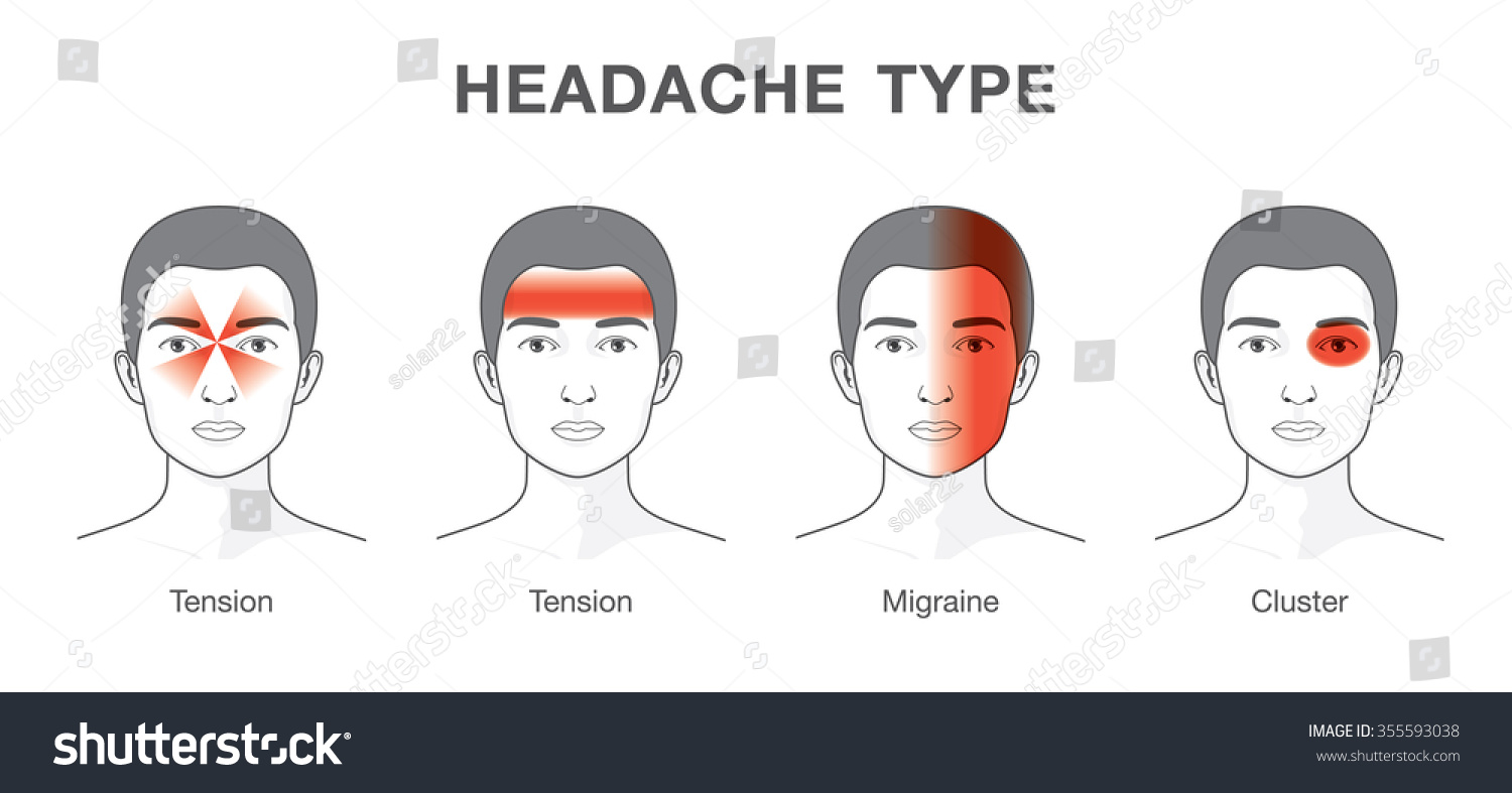 Illustration about headaches 4 type on stock vector 355593038 illustration about headaches 4 type on different area of patient head pooptronica Image collections