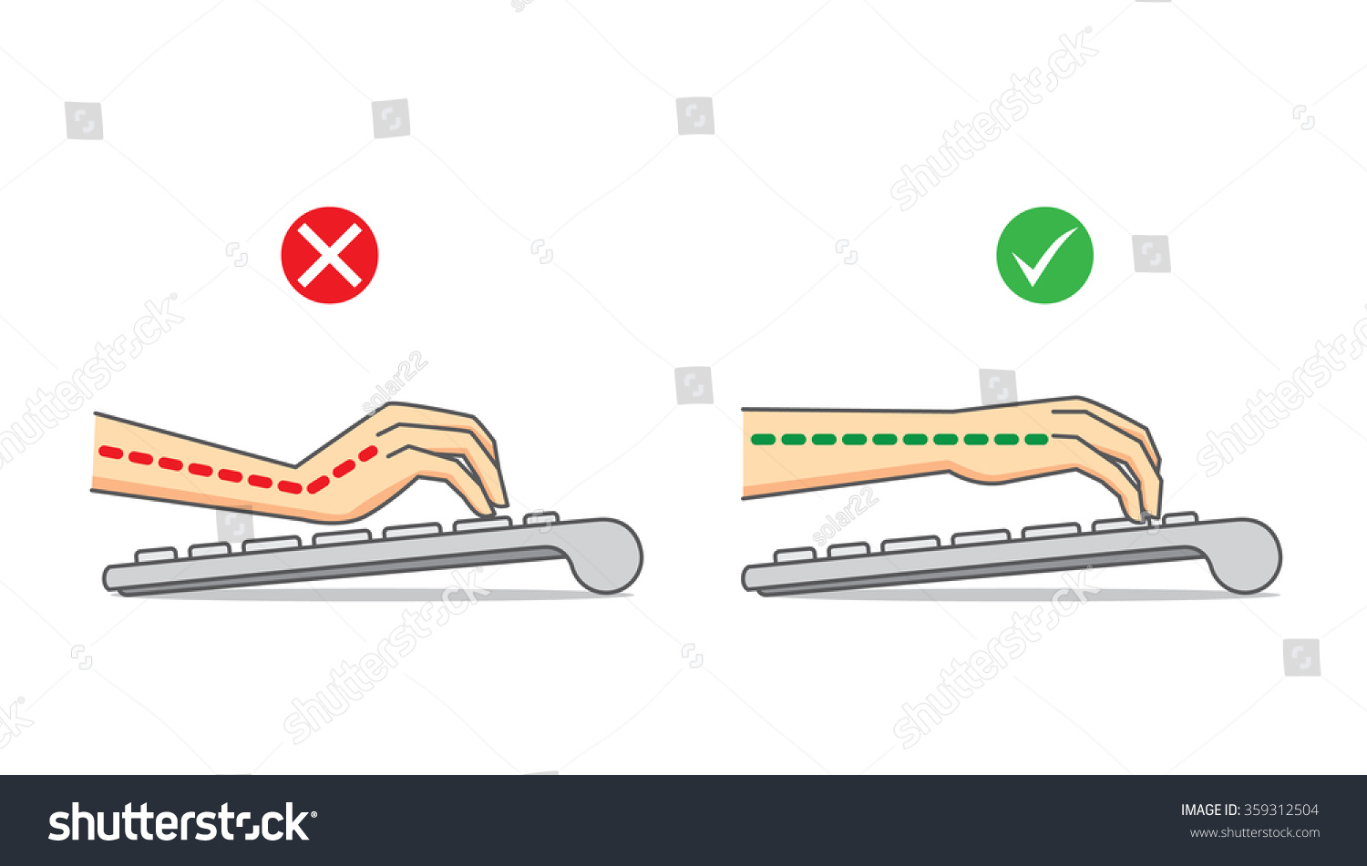 Head Pain Outline Stock Vector Illustration Of Diagram Manual Guide