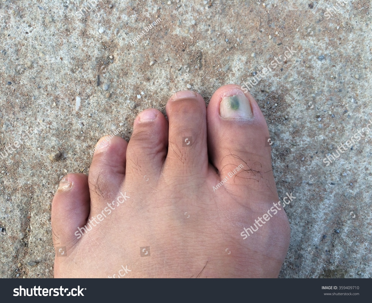 Toenail Infections Stock Photo (100% Legal Protection) 359409710 ...