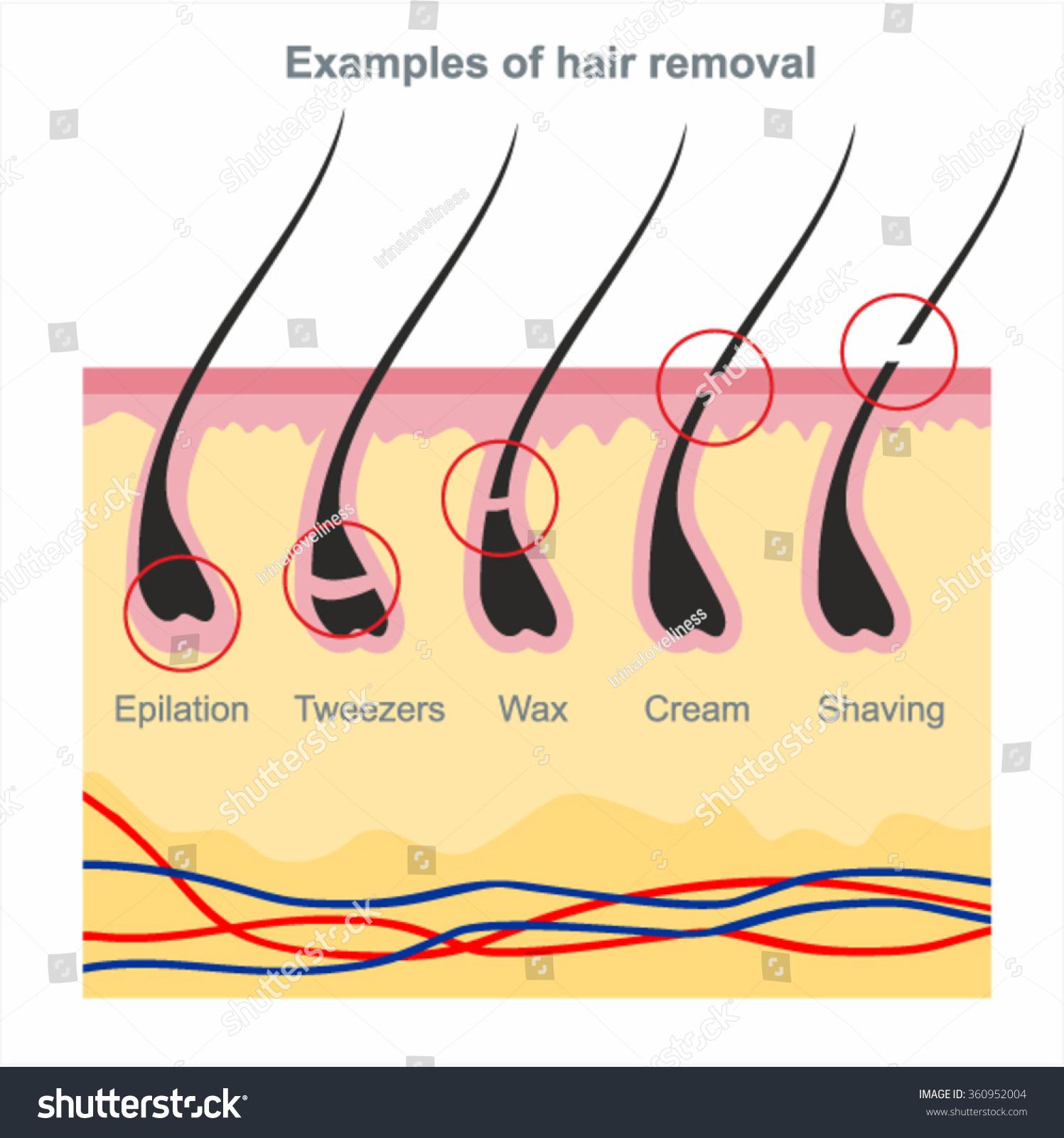Examples Hair Removal Waxing Shaving Tweezers Stock Vector 360952004