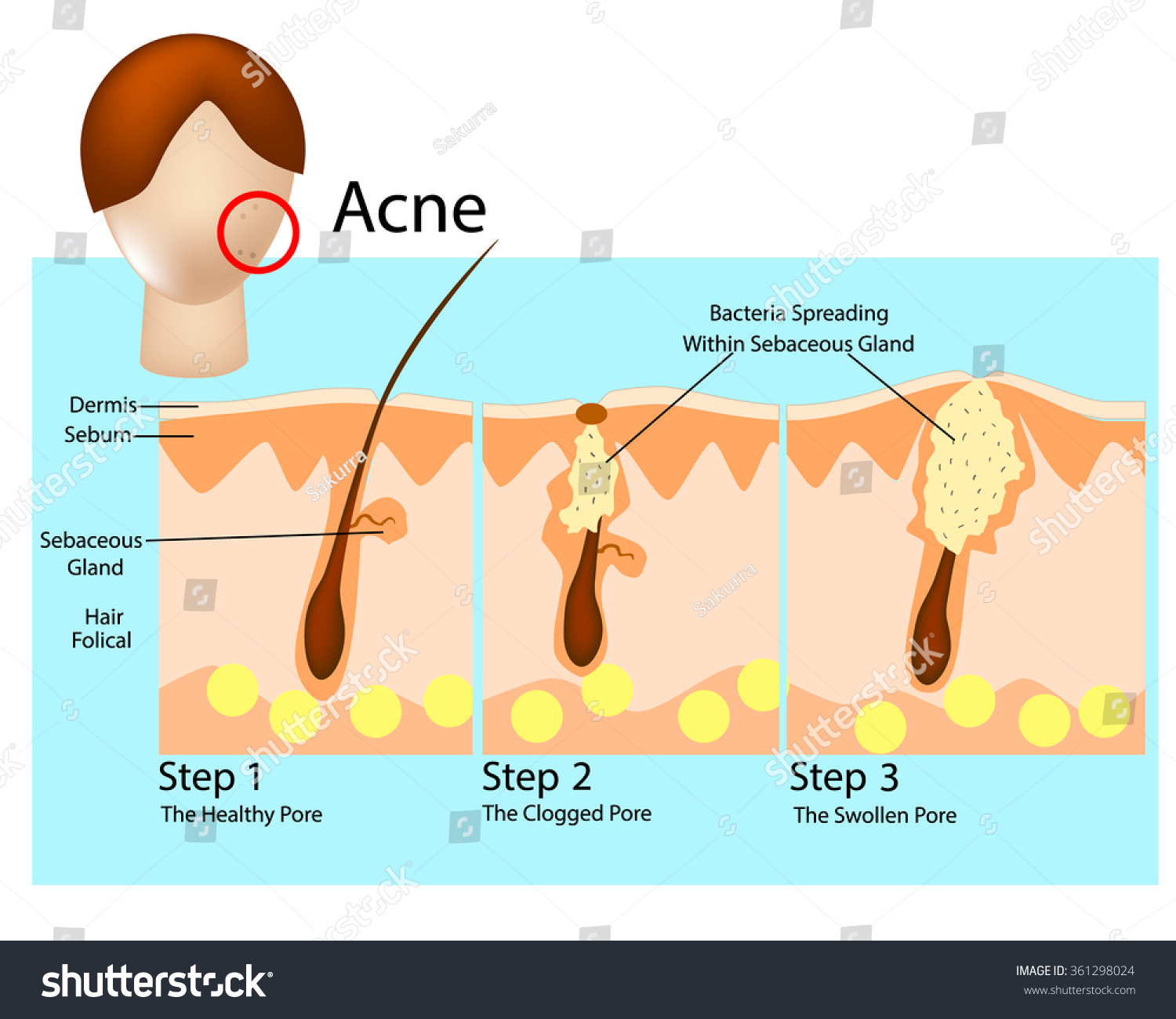 how acne develops acne stages formation stock vector ... diagram of acne cyst diagram of price elasticity of demand