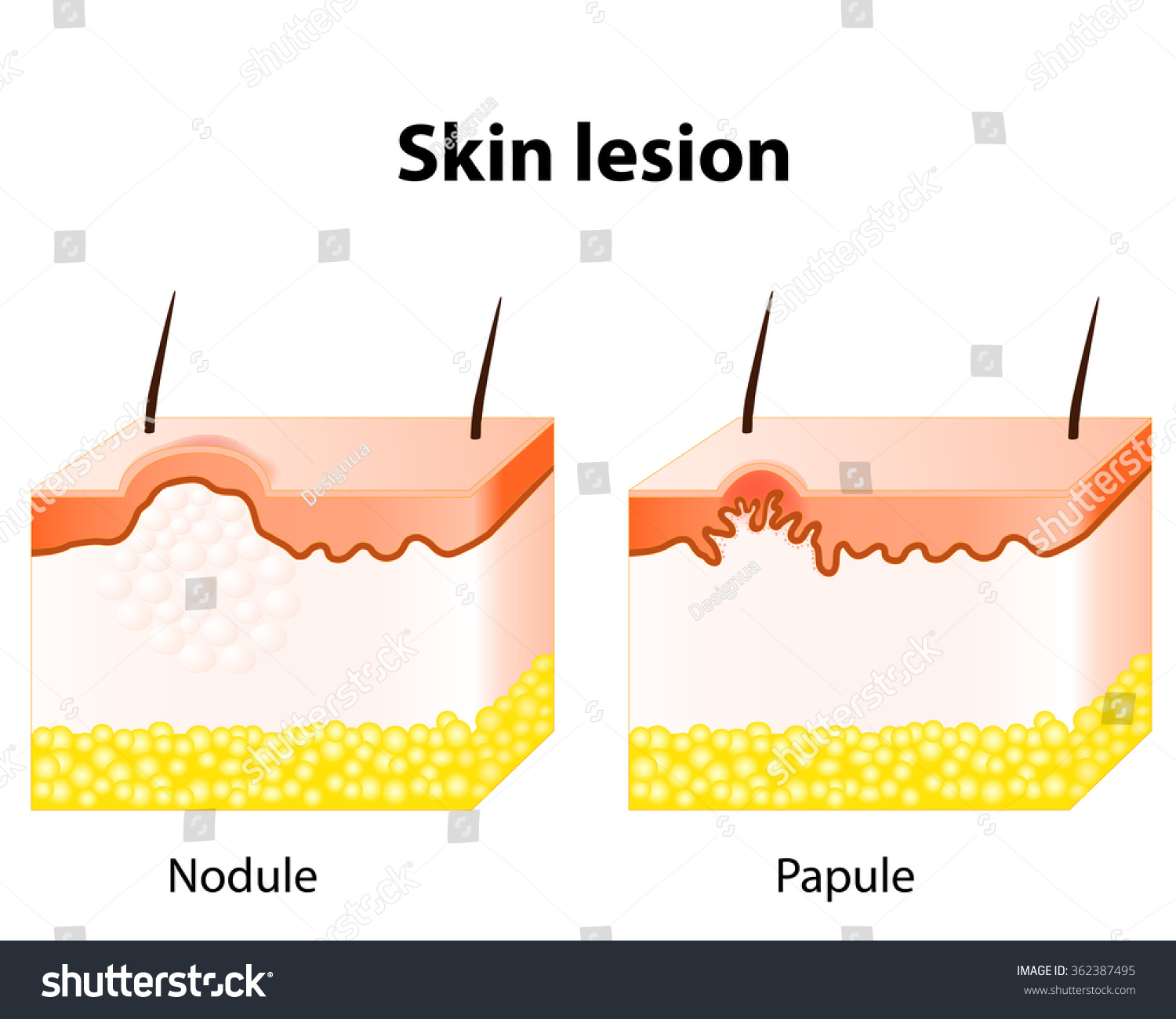 diagram of papules skin lesion papule solid elevation skin stock vector ... #12