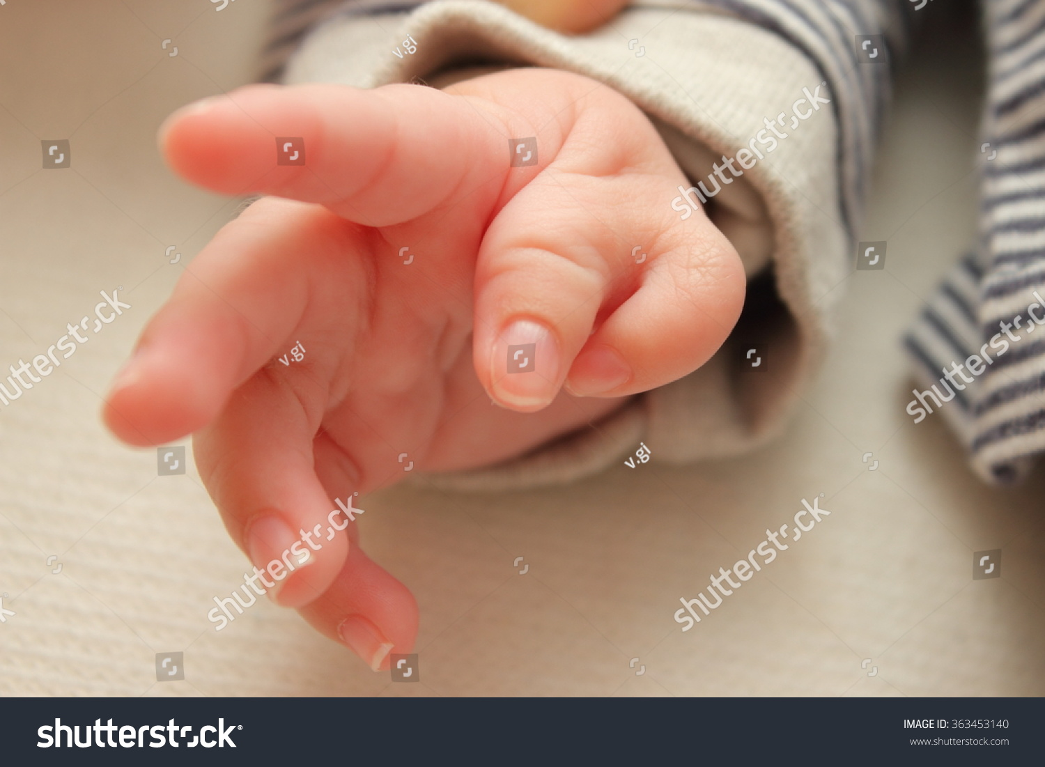 Polydactyly Child Hand Congenital Six Fingers Stock Photo (Royalty ...