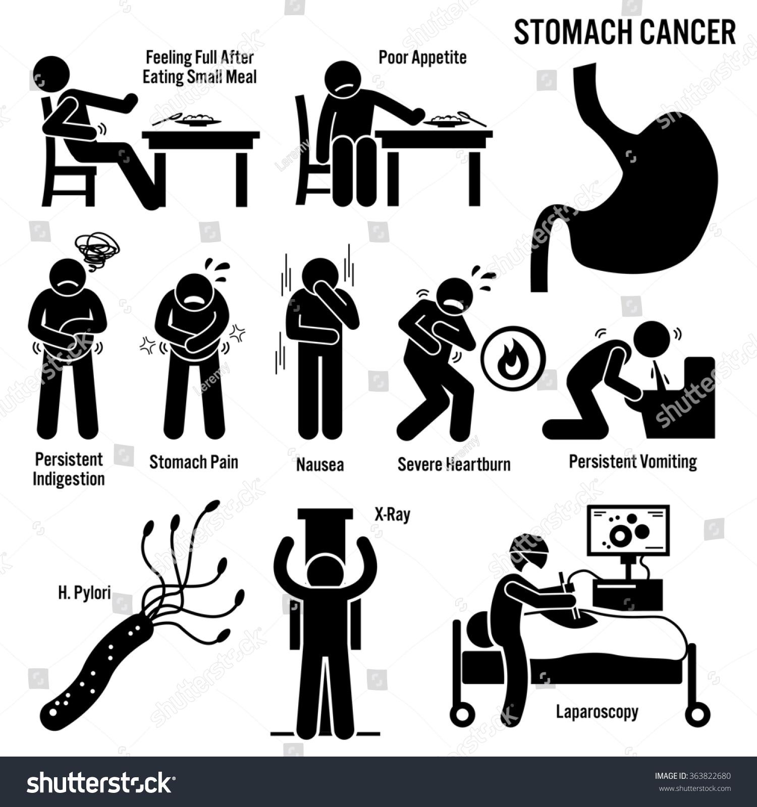 stomach cancer symptoms