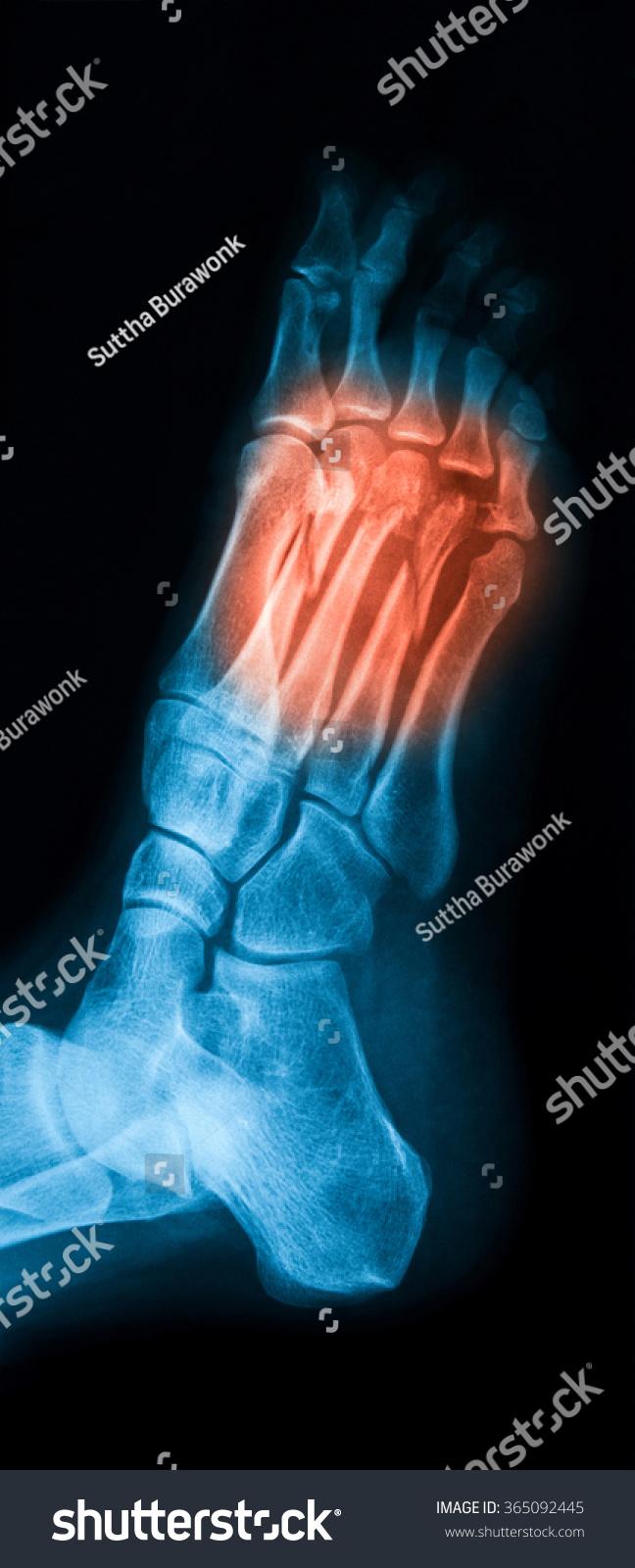 Xray Image Foot Showing Metatarsal Bone Stock Photo (Edit Now ...