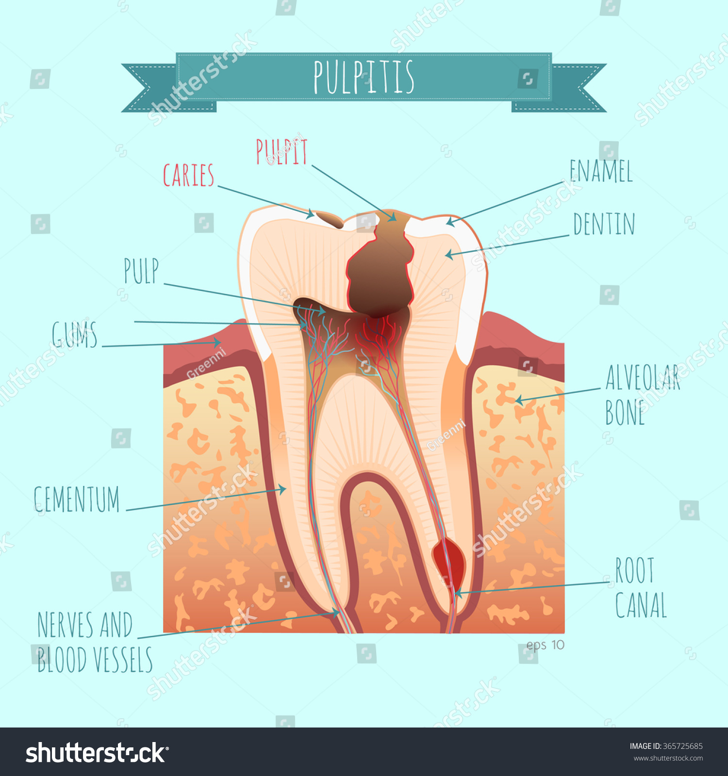 Vector Tooth Anatomy Caries Pulpit Your Stock-Vektorgrafik 365725685 ...