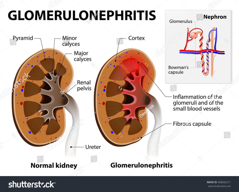 Glomerulonephritis Glomerular Nephritis Kidney Disease Stock Vector ...