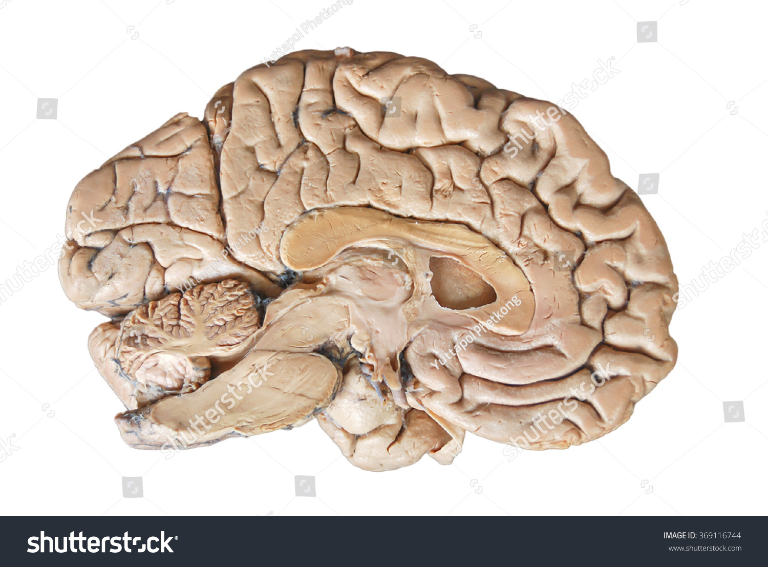 Real Human Half Brain Anatomy Isolated Stock Photo Edit Now