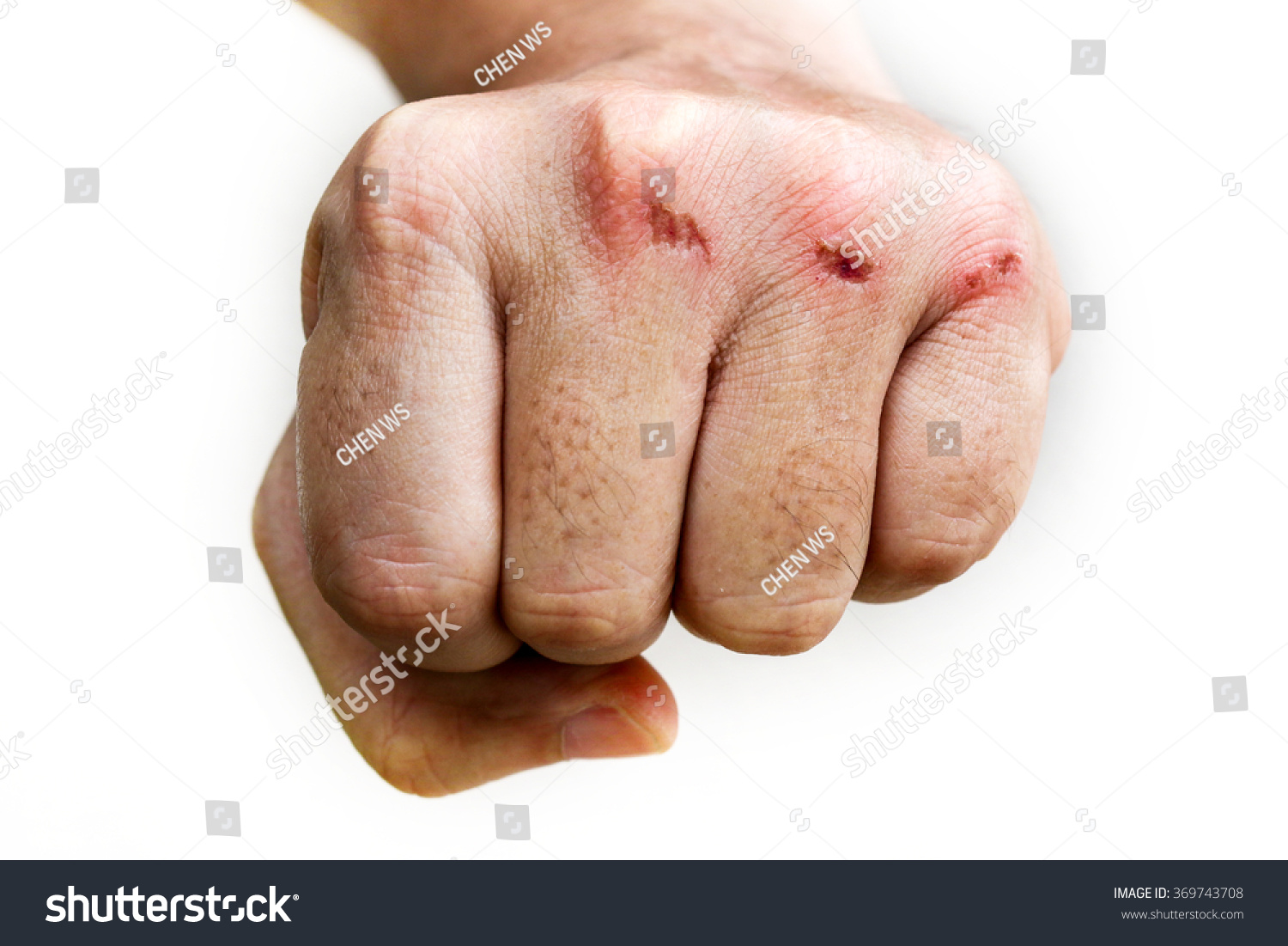 Skin Abrasion Injury On Knuckles Left Stock Photo (Edit Now ...