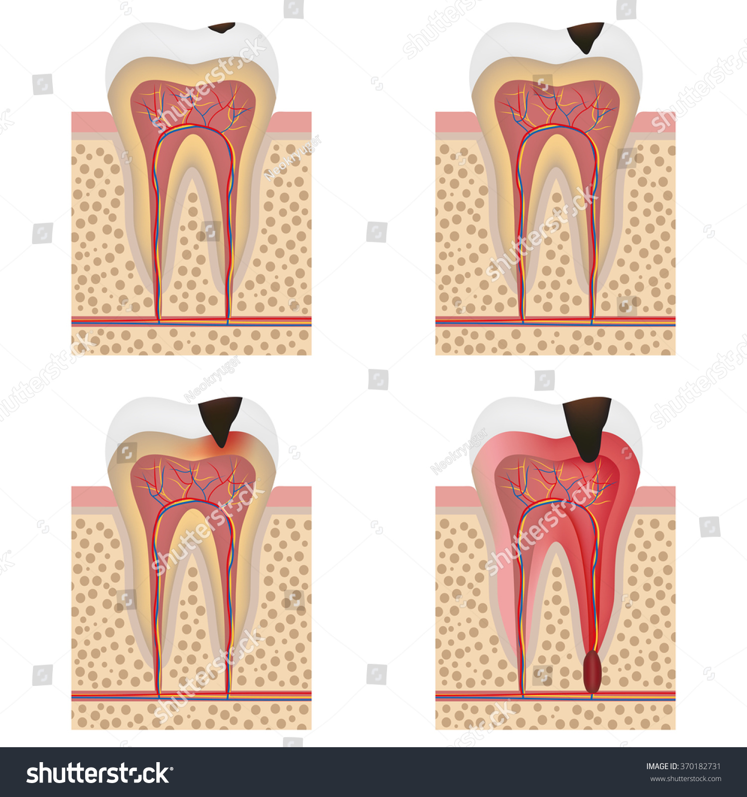 Stages Tooth Decay Illustration Development Dental Stock Vector ...