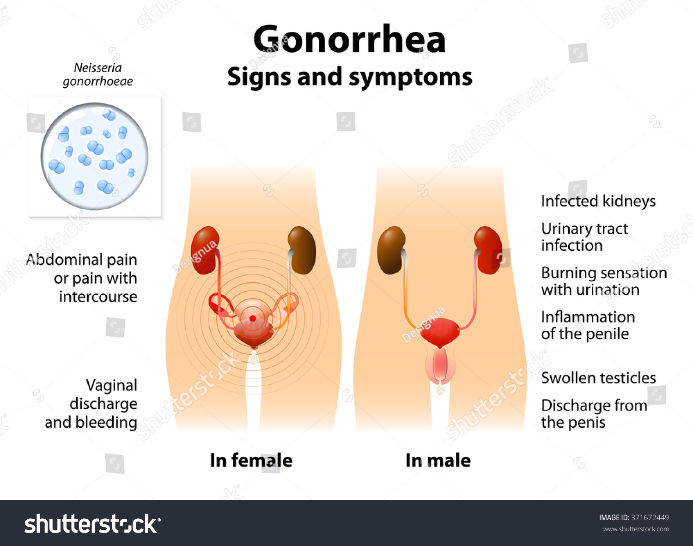 Gonorrhea Clip Art | www.pixshark.com - Images Galleries ...