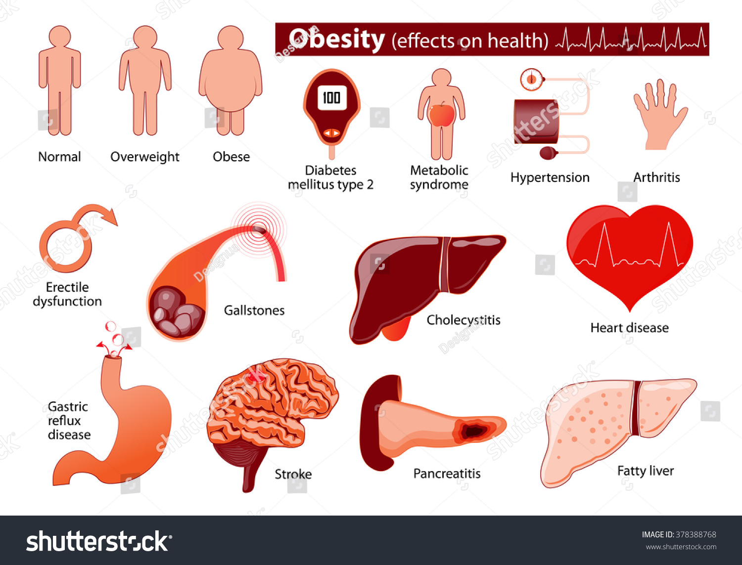 """the causes of heath problems and obesity in some countries Obesity is related to some of the leading causes of death, including  in lower- income countries, people with higher ses were more likely to  the implication is that while economic development improves health, """"problems of."""