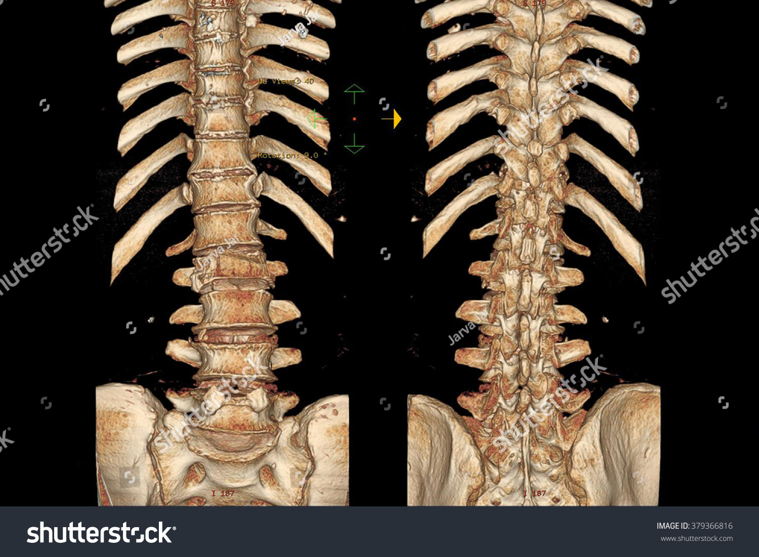 C Tscan Lumbar Spine Pelvis Inflammation Spine Stock Photo (Edit Now ...