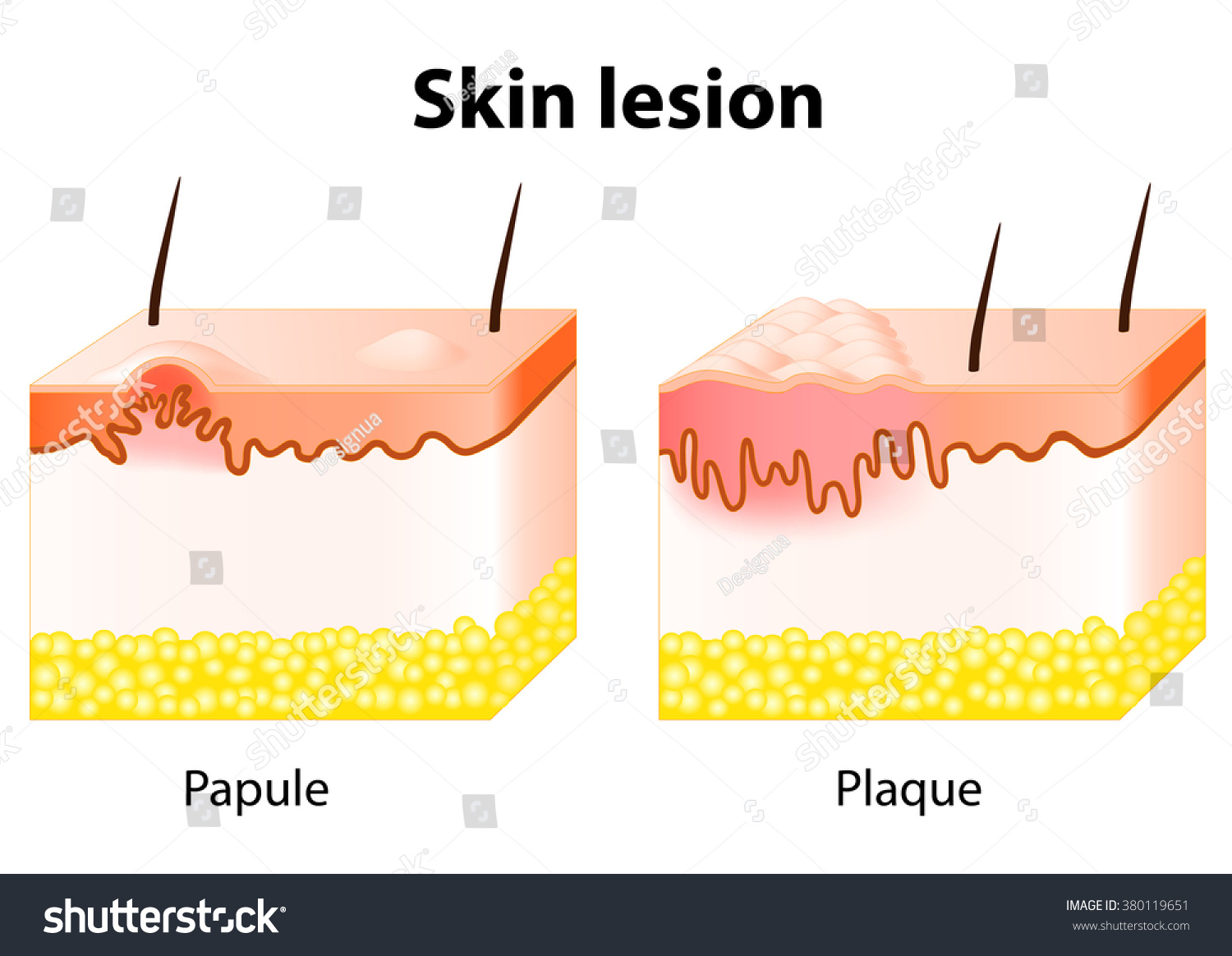 diagram of papules skin lesion. papule is a solid elevation of skin and ...