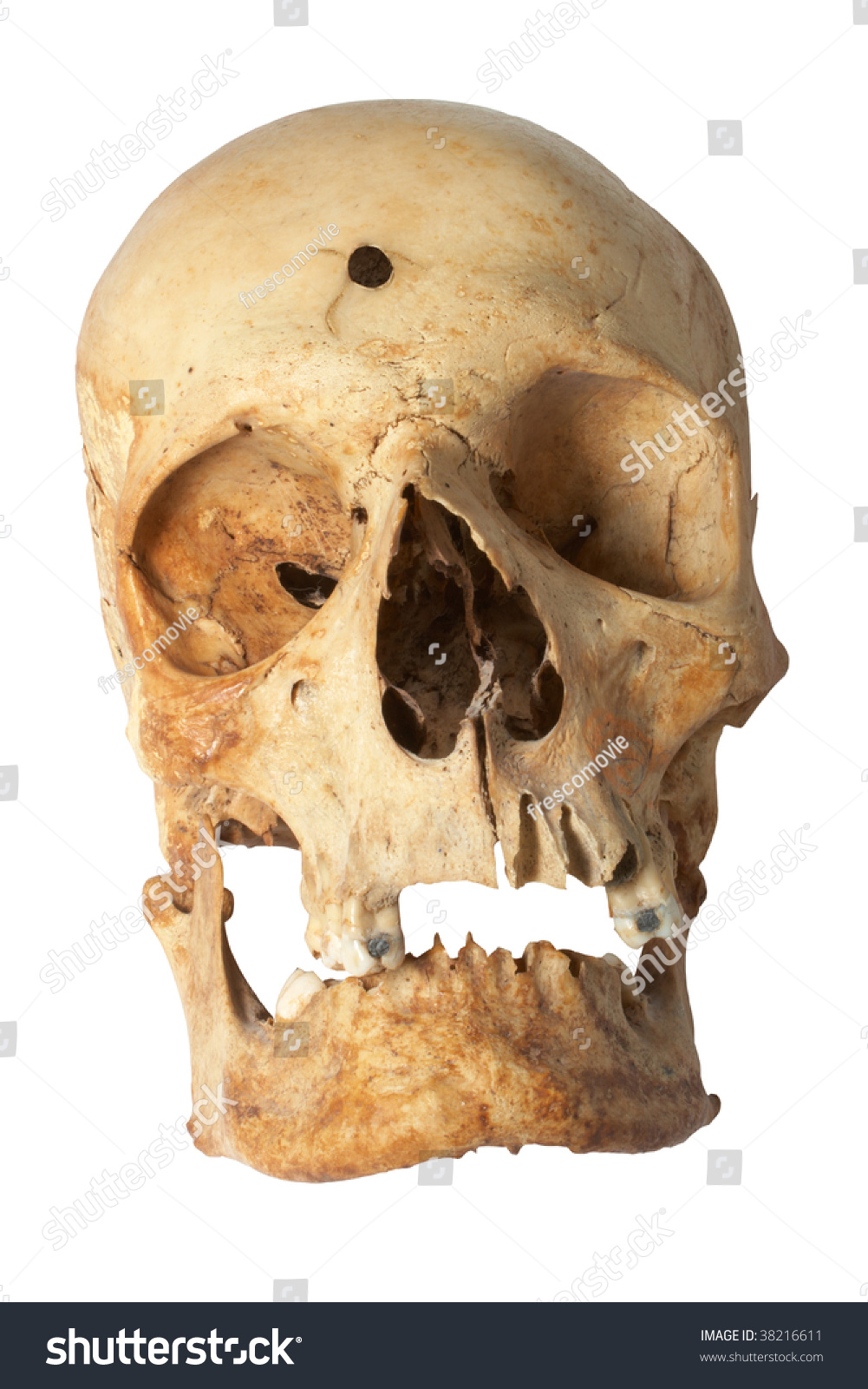 Human Skull Bullet Hole Stock Photo Edit Now 38216611 Are you searching for bullet hole png images or vector? https www shutterstock com image photo human skull bullet hole 38216611