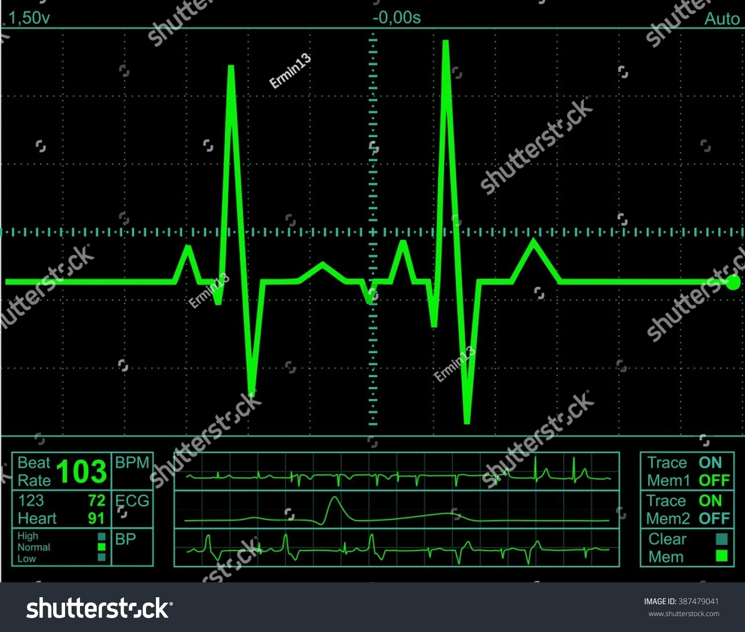 Illustration Electrical Activity Human Heart Rate Stock ...