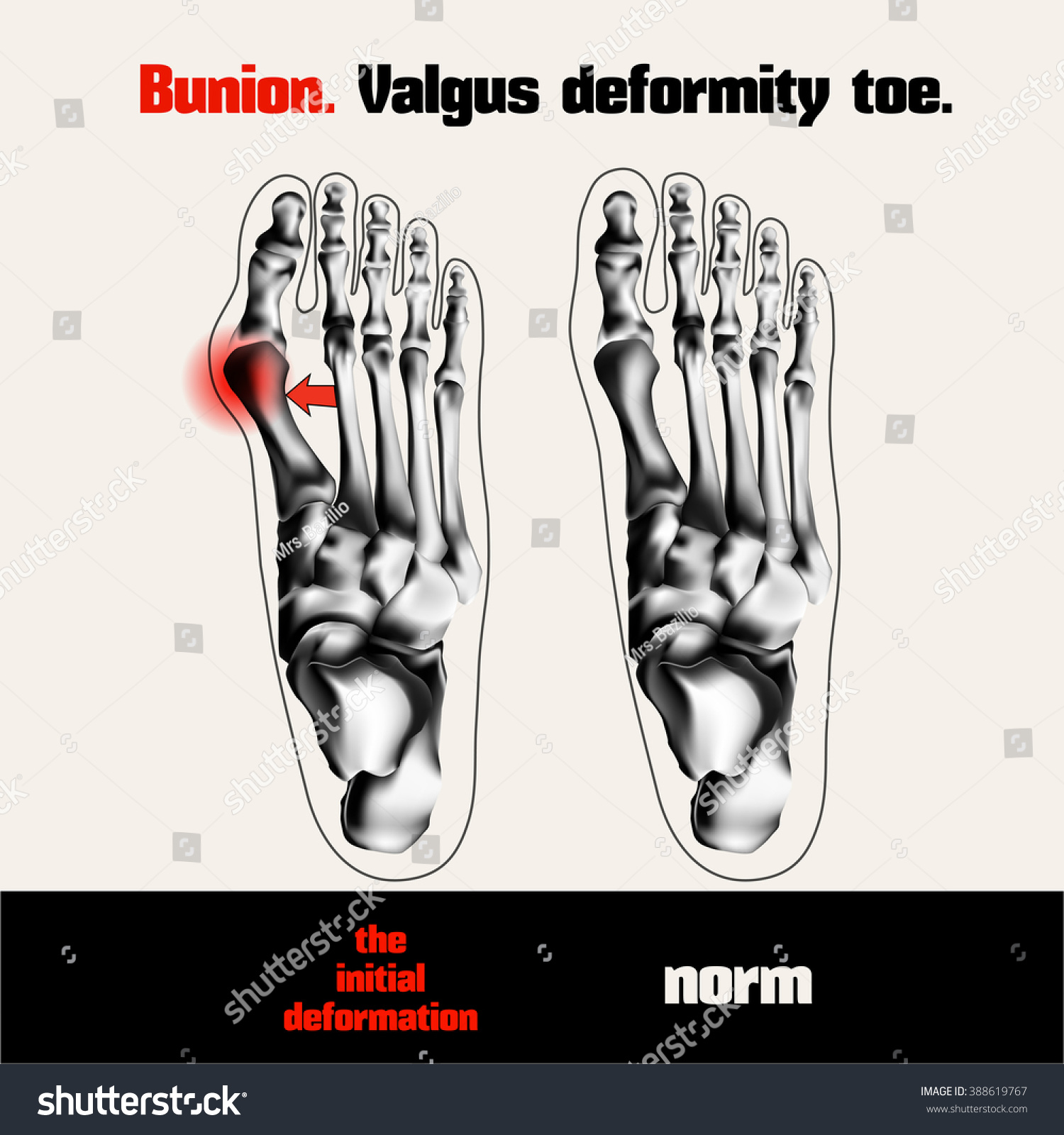 Bunion Valgus Deformity Toe Stock Vector HD (Royalty Free) 388619767 ...