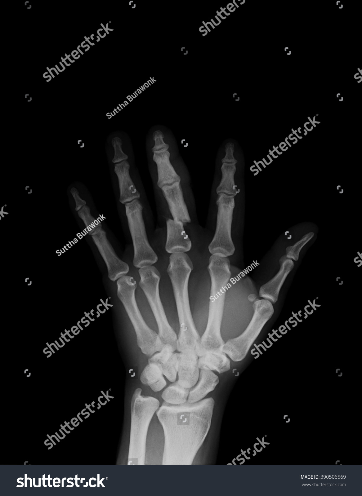 Digital elbow with wooden splint x-ray image showing lower humerus ...