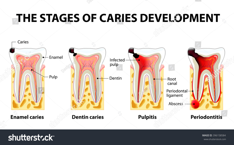periodontitis vs gingivitis