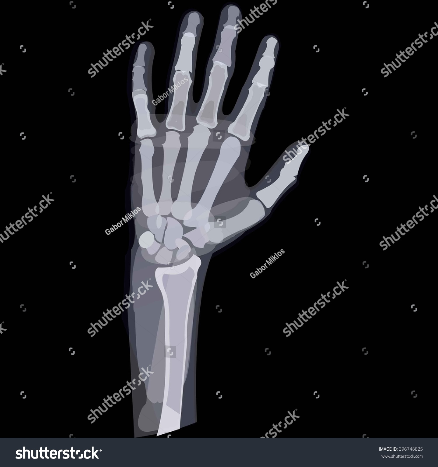 skeletal hand | EZ Canvas